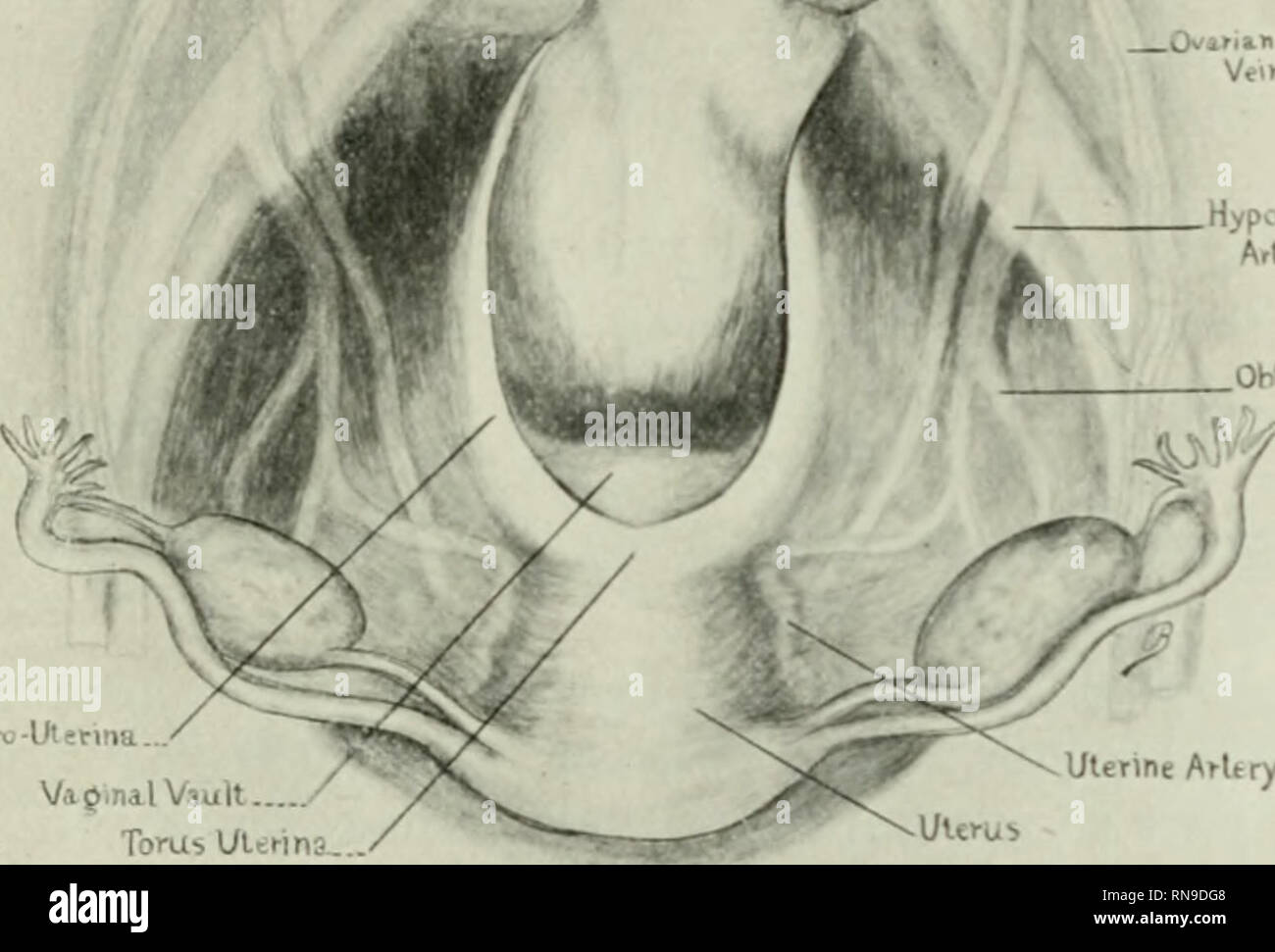 . The anatomical record. Anatomy; Anatomy. THE SACRO-UTERIXE LIGAMENTS 5 Morris (20) calls the posterior peritoneal folds of the uterus, 'the recto-uterine ligaments,' and states that they become continuous with the peritoneal investment of the second part of the rectmn, and that between their layers lie the utero-sacral ligaments, the latter being flat fibro-muscular bands, extending from the highest part of the cer- vix uteri, where they are more or less continuous with the uterine fibers in the recto-uterine peritoneal folds, to the sides of the sacrum N f. VapinalViult TomsUlsi-ina. Ulenne - Stock Image