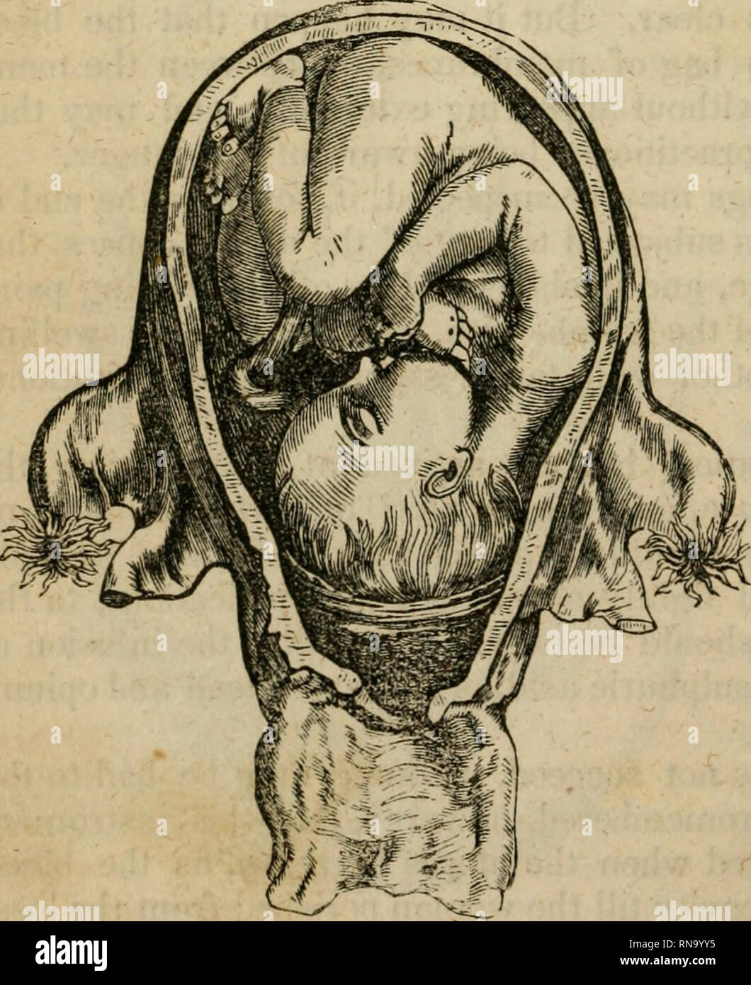 . An analytical compendium of the various branches of medical science, for the use and examination of students. Anatomy; Physiology; Surgery; Obstetrics; Medicine; Materia Medica. 104 OBSTETRICS. the membranes and allowing the liquor amnii to escape. As soon as this is done, the uterus contracts, compresses the orifices of the bleeding vessels, and thus arrests the hemorrhage. Should the contractions not come on, the organ may be stimulated by the administration of ergot, and friction over the abdomen. The OS uteri is generally so relaxed by the hemorrhage as to be very dilatable. It has also  - Stock Image
