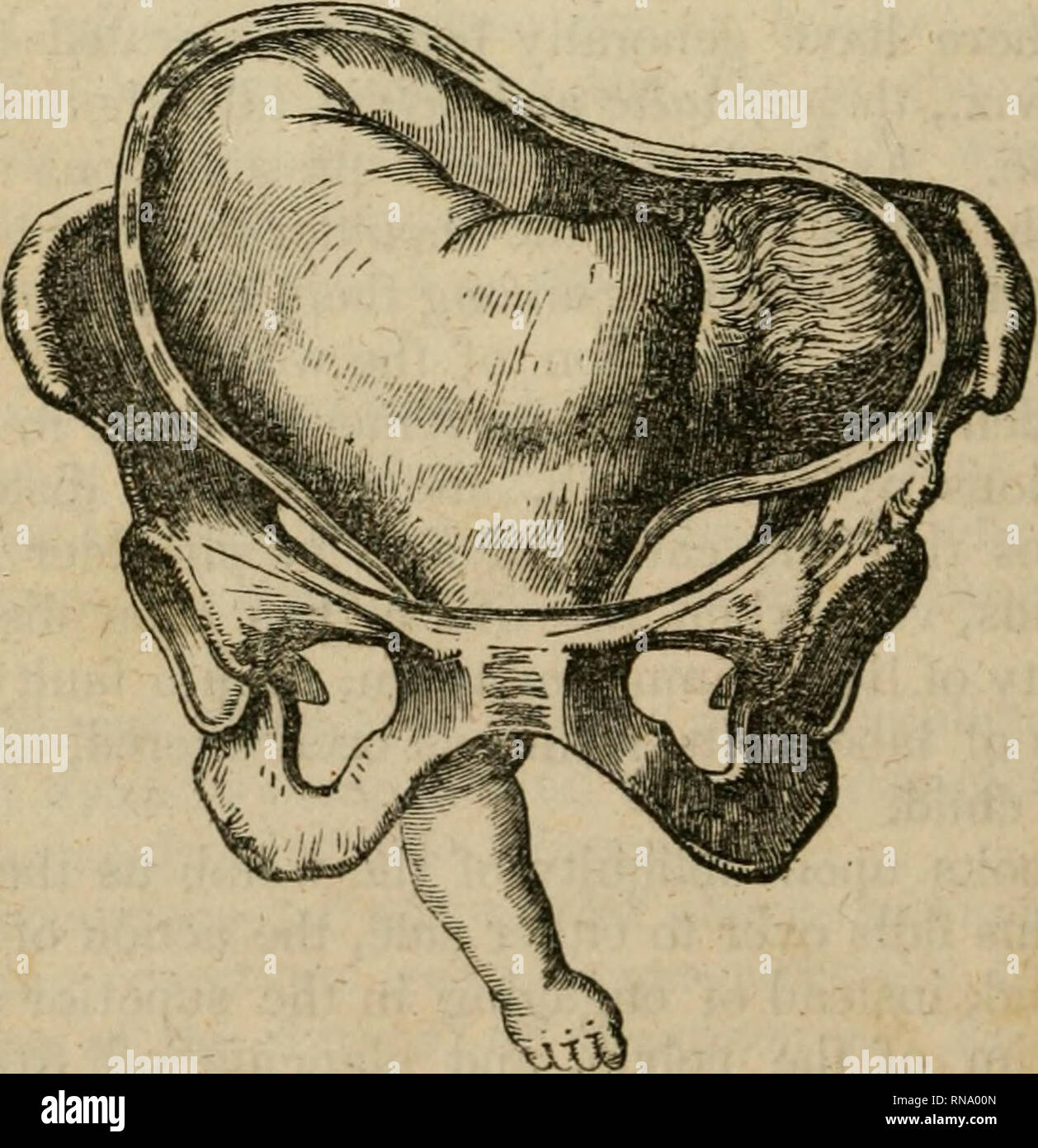 . An analytical compendium of the various branches of medical science, for the use and examination of students. Anatomy; Physiology; Surgery; Obstetrics; Medicine; Materia Medica. 86 OBSTETRICS. turned upwards into the costa of the ilium, while the shoulder de- scends or engages in the superior strait. Diagnosis.—It is only when the labour has commenced, and indeed made some progress, that a shoulder presentation can be positively detected. It may be suspected, if we are unable to reach the presenting part, if the os uteri, though flaccid, opens slowly, if the bag of waters is cylindrical, or  - Stock Image