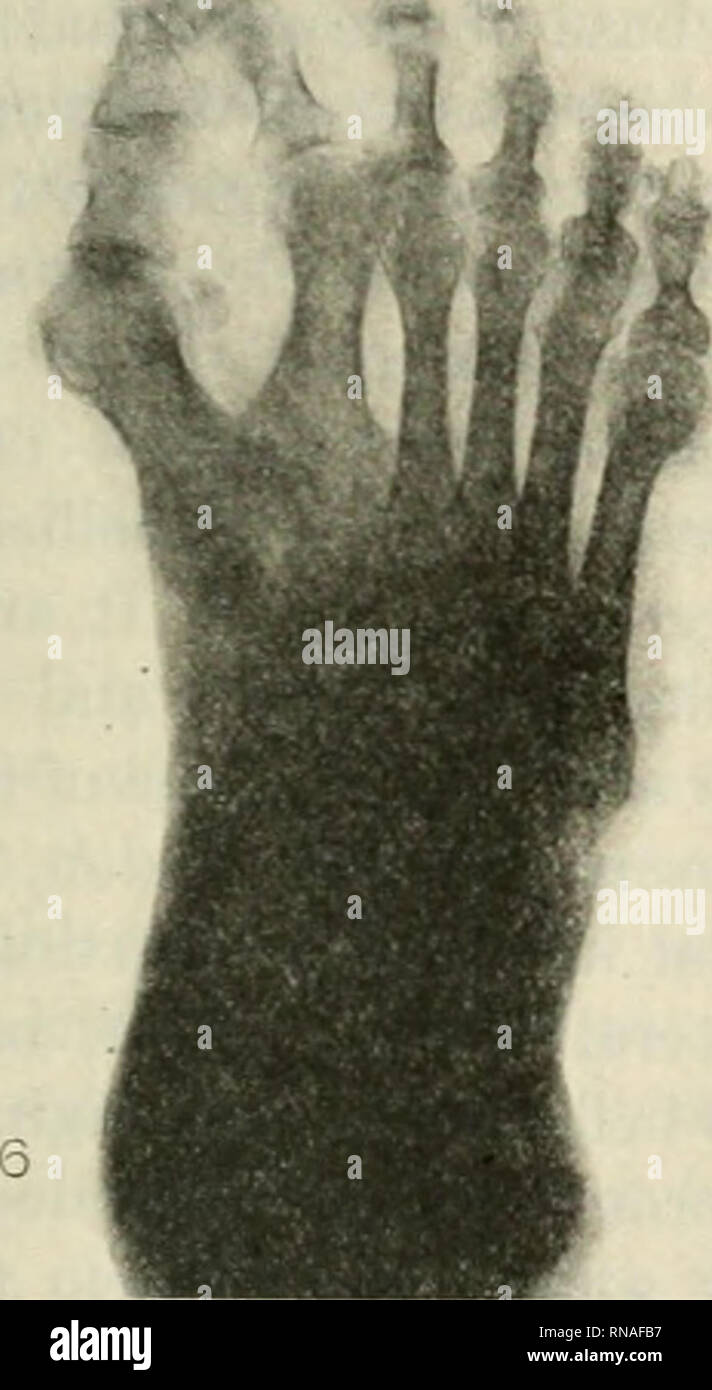 . The Anatomical record 1922-1923. Anatomy. *«* ^. Fig. 5 Skiagram of the left foot; rayed from the dorsal aspect. Fig. 6 Skiagram of the right foot; rayed from the dorsal aspect. the lateral first metatarsal. The lateral first metatarsal of the right foot is extended proximally as a wedge-shaped process fitting be- tween the distal extremities of the first and second cuneifonns. If the process were transversely separated from the body of the metatarsal, it would have the same size, shape, and articulations as the accessory bone of the left foot. From their point of articu- lation with the tar - Stock Image