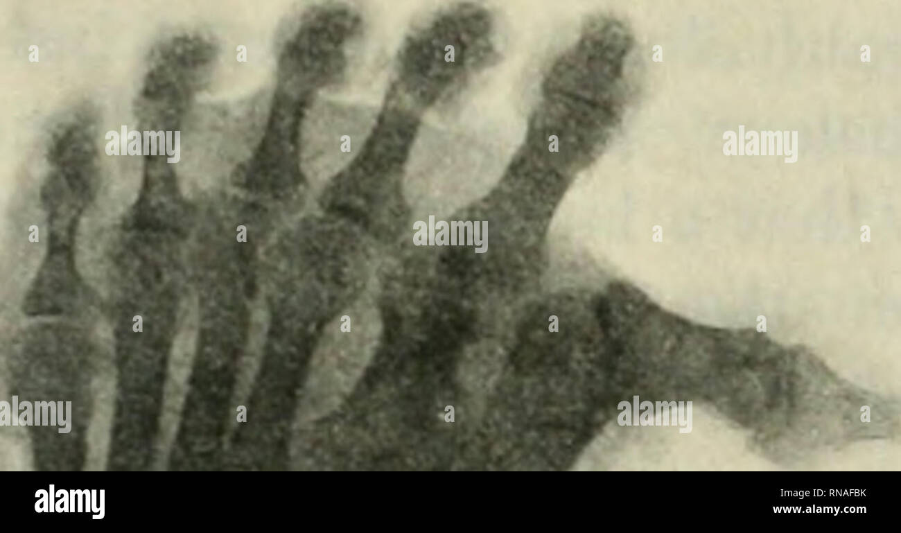 . The Anatomical record 1922-1923. Anatomy. A CASE OF HYPERDACTYLISM 217 cuneiform, but the articular facet of the right one faces farther proxiniolaterally than does the similar facet of the left. The lateral first metatarsal of the left foot articulates proximally with the first cuneifonn and with an accessory bone. This accessory bone is a triangular pyramid in shape, its base facing dorsally. It is wedged between the distal extremities of the first and second cuneiforms, articulating with them as well as with. *«* ^. Please note that these images are extracted from scanned page images that - Stock Image