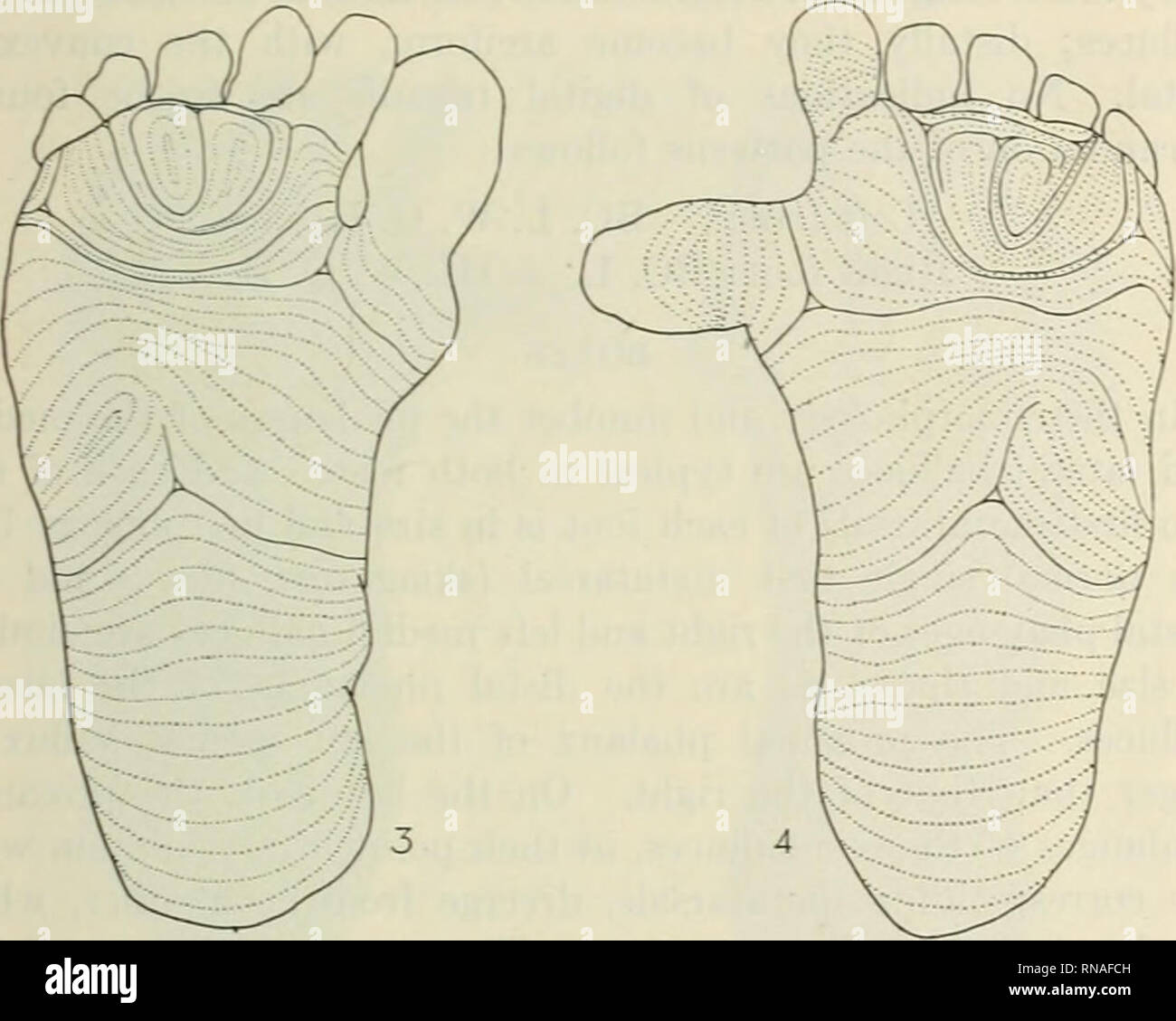 . The Anatomical record 1922-1923. Anatomy. A CASE OF HYPERDACTYLISM 215 around the lateral border of the second interdigital area, and its ridges then become continuous with the transverseh' placed ridges in the depressed region of sole area at the bases of the toes. In the left foot the loop becomes confluent with the tMrd in- terdigital area. In both feet the third interdigital area is an open field; in the right foot it opens at the distal margin of the. Fig. 3 Epidermal patterns of the sole, right foot; triradii and interpretation lines unbroken; courses of friction ridges shown in dotted - Stock Image