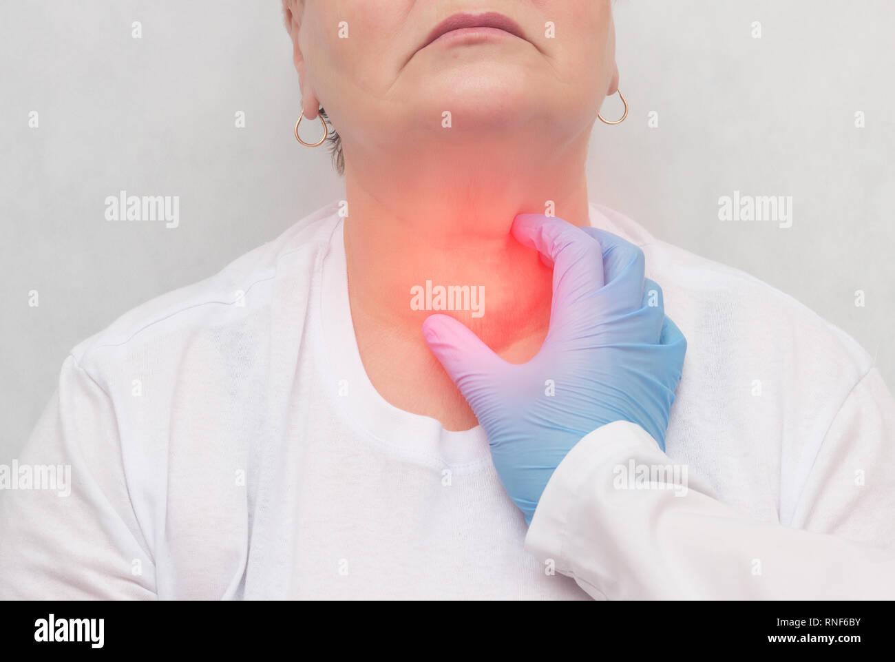 Thyroid Cancer High Resolution Stock Photography And Images Alamy