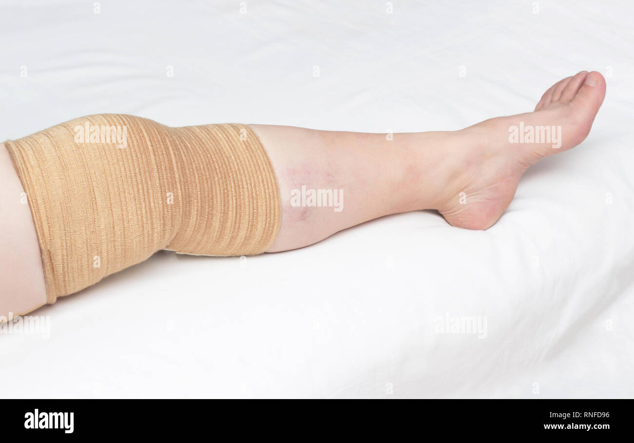 Medical kneecap for fixing the sore knee from osteoarthritis and other diseases, close-up, copy space, compression, background, elastic Stock Photo