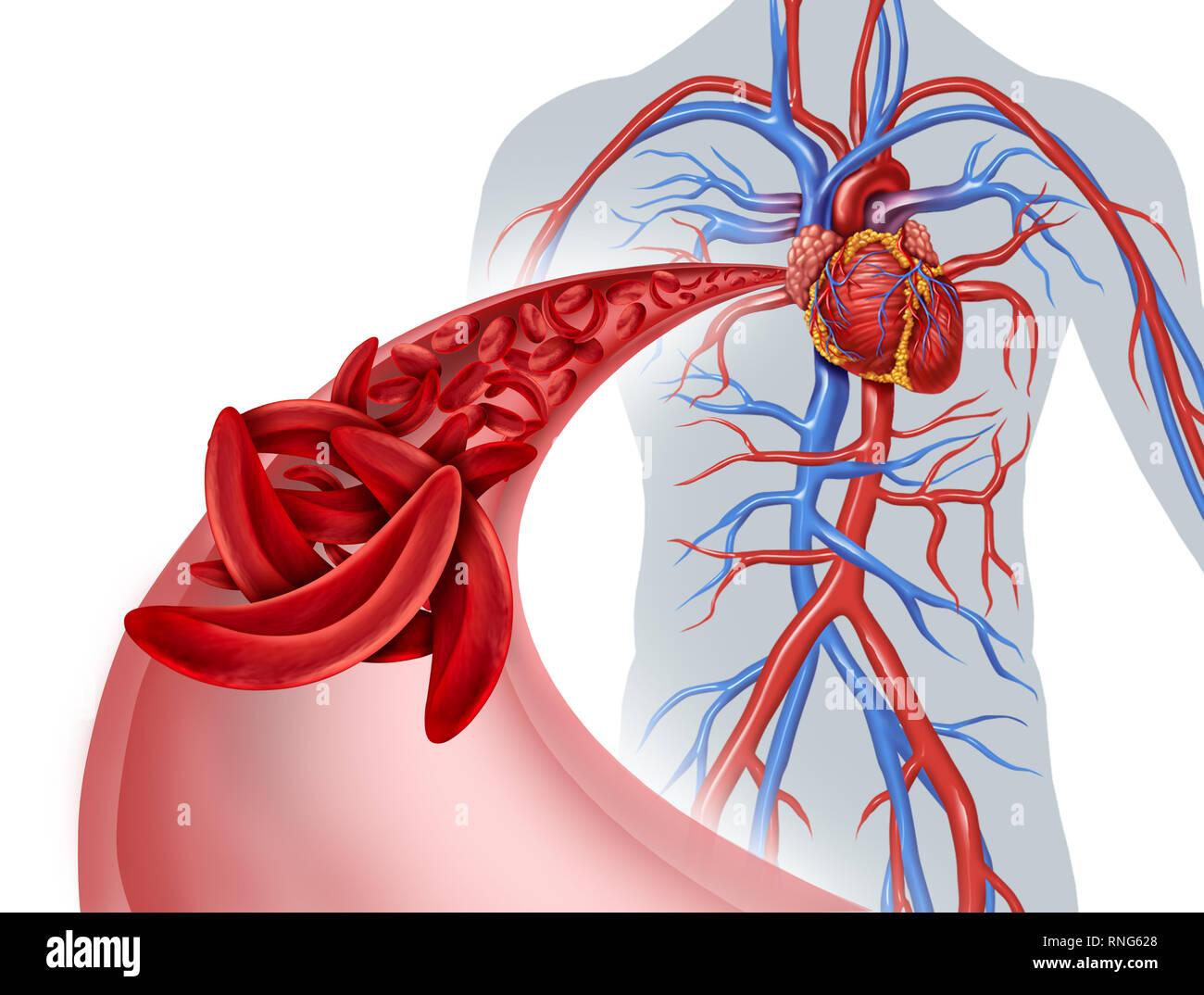 heart blockage