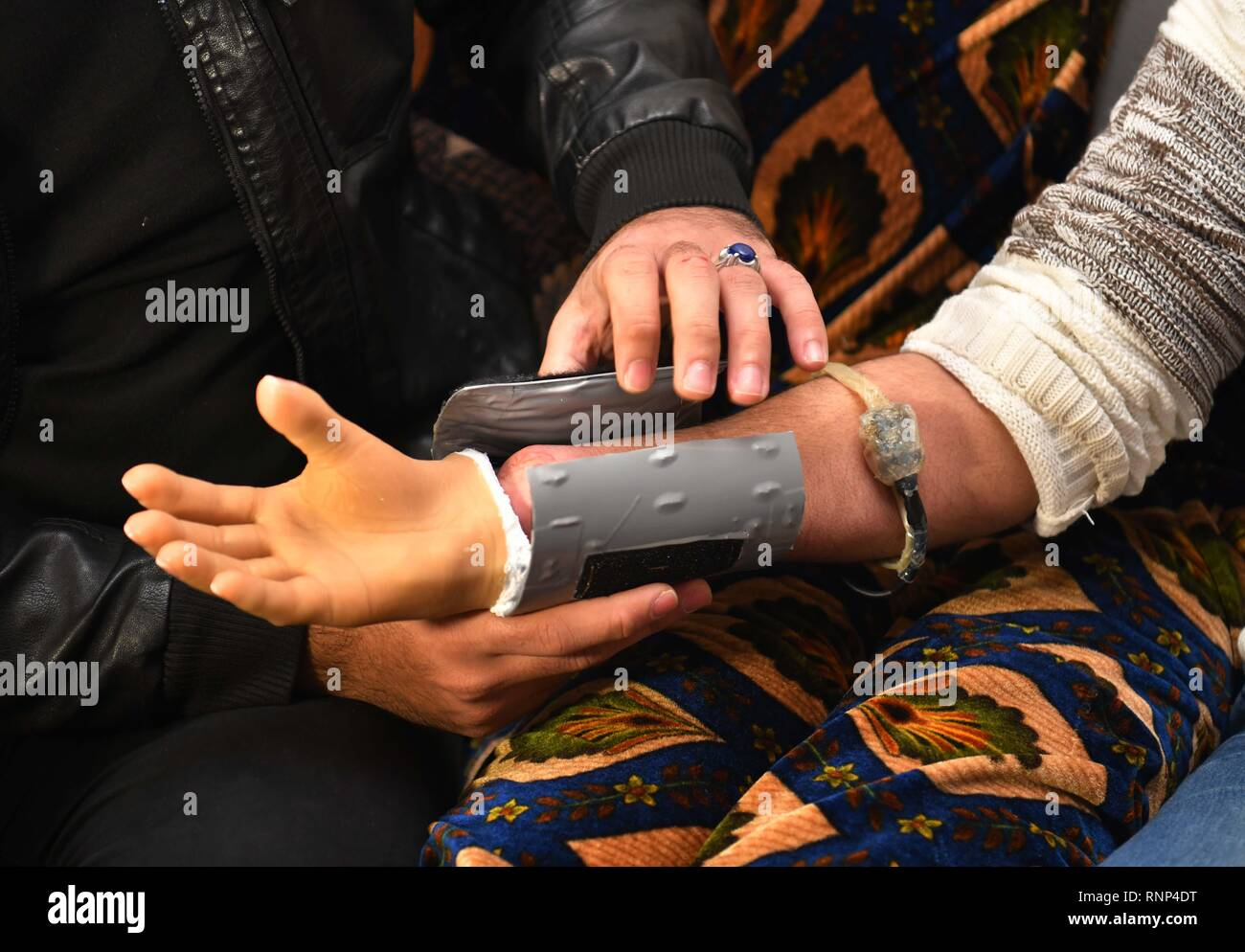 (190220) -- HAMA, Feb. 20, 2019 (Xinhua) -- Ali Bakeer installs a prosthetic hand he created for an amputated military officer in Rabia of Hama province, central Syria, on Feb. 18, 2019. Ali Bakeer, a medical engineering student in Syria, has developed a prosthetic hand meant to help the disabled people who suffered injuries during the war. Born in the town of Rabia in the central province of Hama, the 22-year-old man, who is a third-year college student, said he had a strong interest in electronics as a boy. The idea of creating the prosthetic hand was driven by the needs of the injur - Stock Image