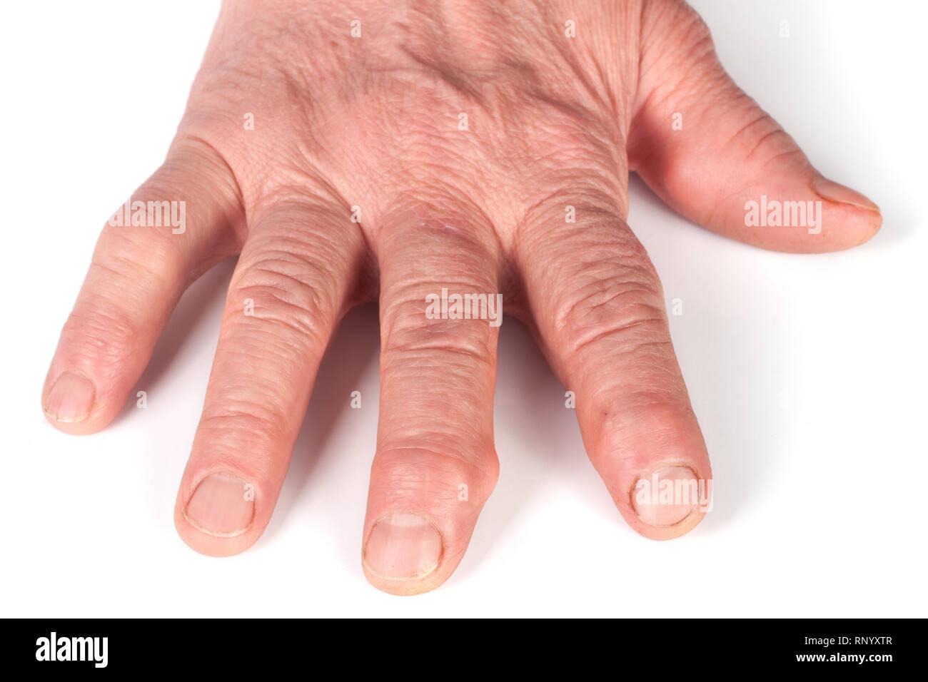 Rheumatoid polyarthritis of hands isolated on white background. - Stock Image