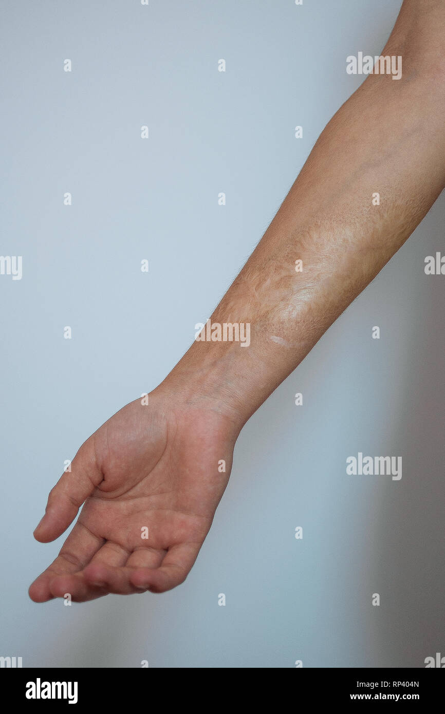 Art project about tattoos and scars. Stock Photo