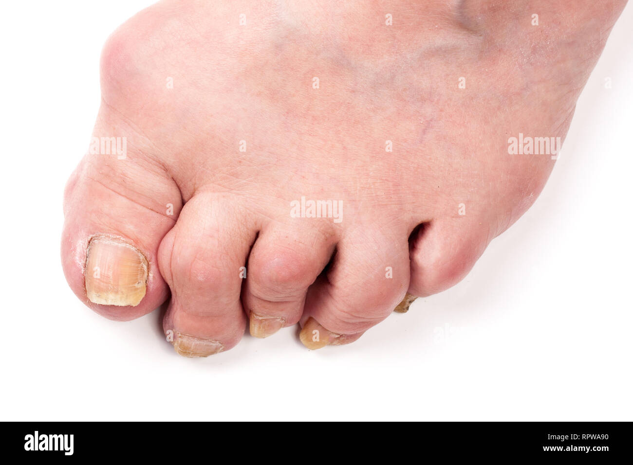 Rheumatoid polyarthritis on foot isolated on white background - Stock Image
