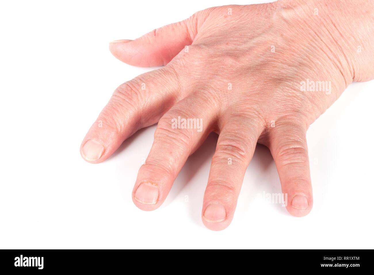 Rheumatoid polyarthritis of hands isolated on white background - Stock Image