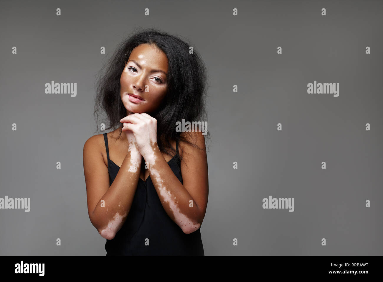 Beautiful African girl in studio with skin problems Vitiligo