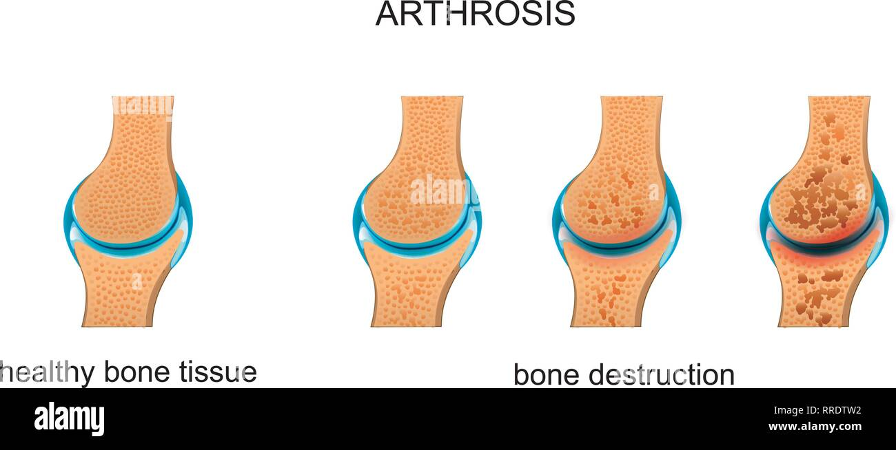 vector illustration of arthrosis. destruction of bone tissue - Stock Image