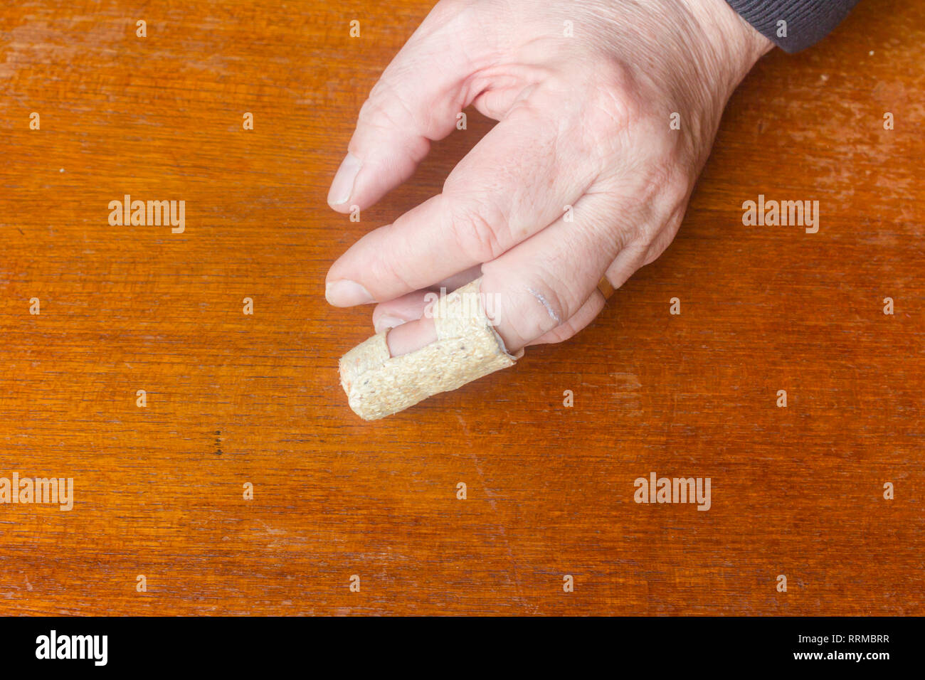 The left hand of a middle-aged man with a mallet finger injury to the middle finger. The injury, caused by a sudden jolt to the finger while the finge Stock Photo
