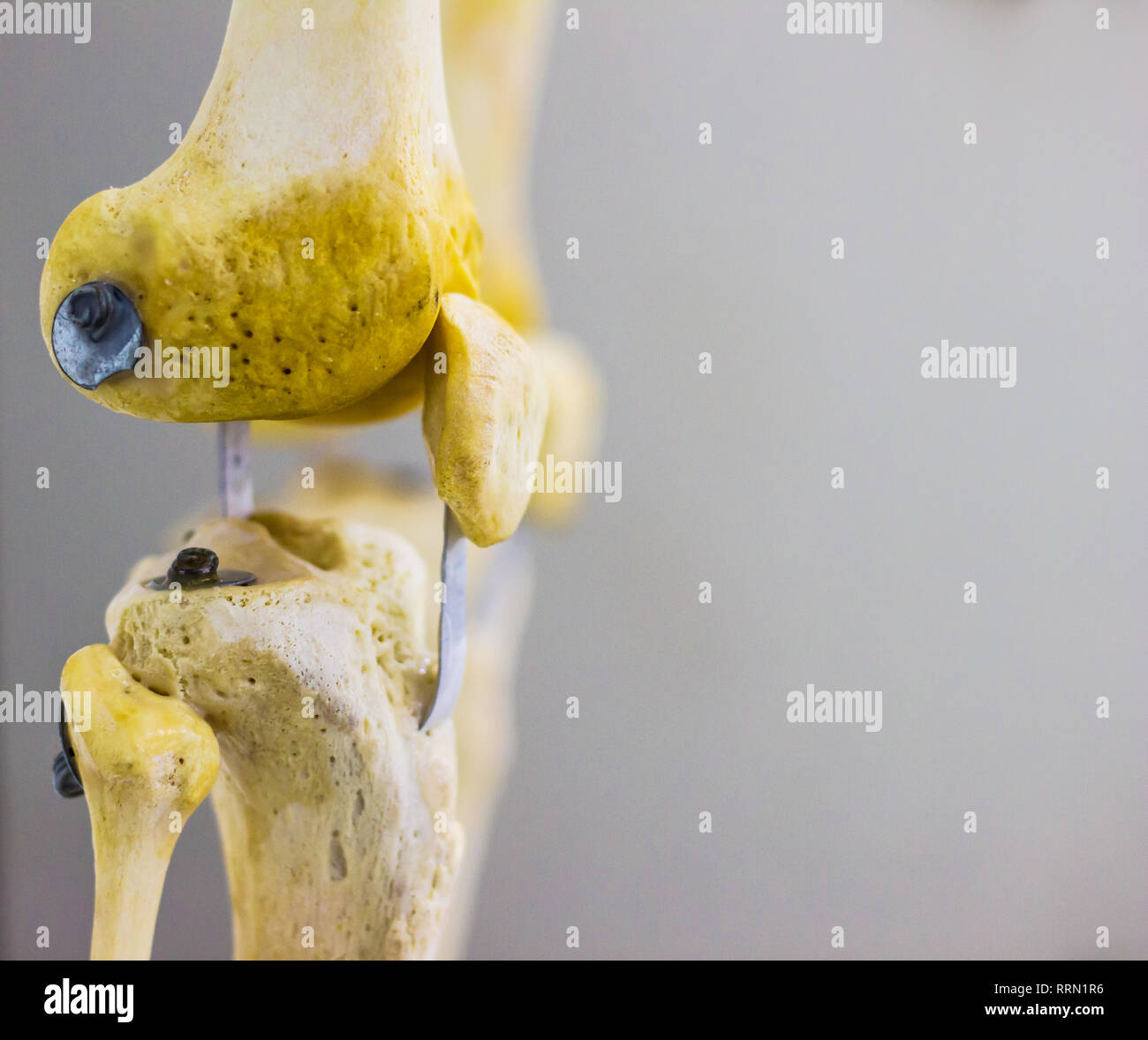 lateral side view of articulated femur tibia fibula patella bones showing human knee joint anatomy in isolated white background with space for text - Stock Image