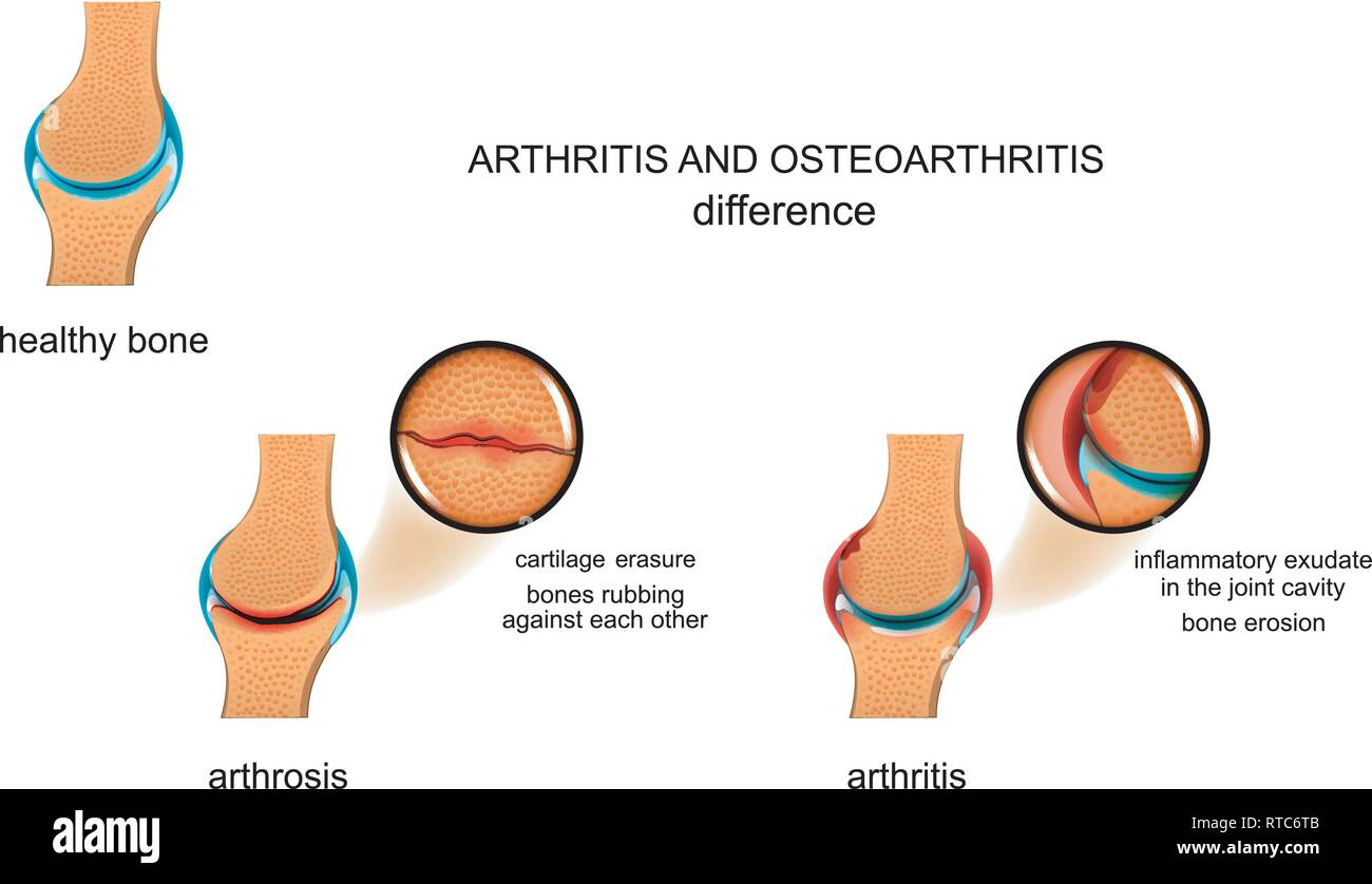 vector illustration of the difference between arthrosis and arthritis - Stock Image