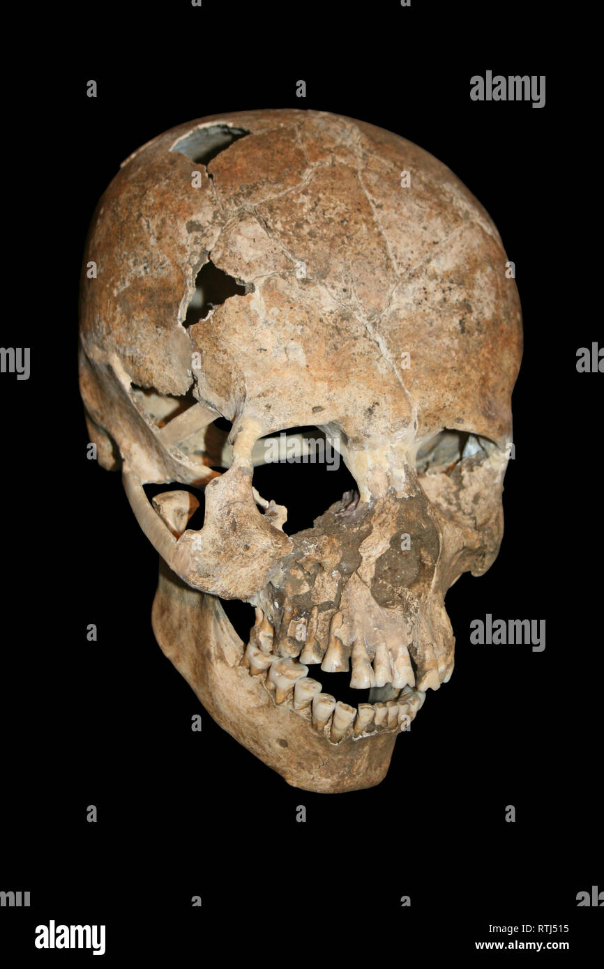 Elongated Human Skull - Costa Rica - Stock Image