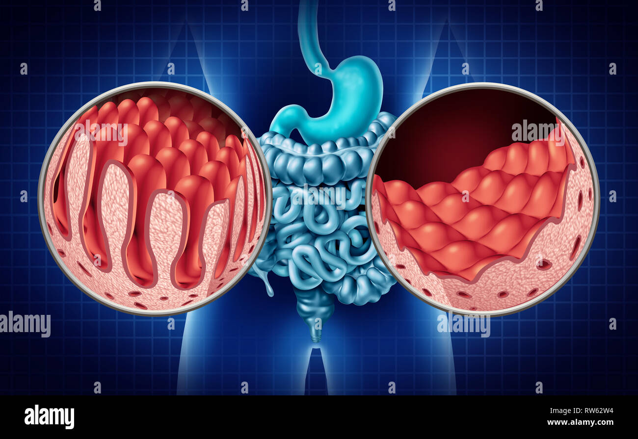 celiac or coeliac disease of the intestine anatomy medical concept with  normal villi and damaged small bowel lining as an autoimmune disorder