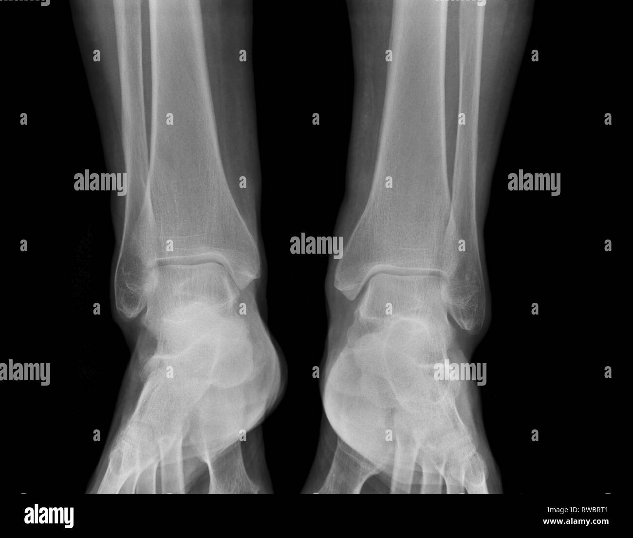 X-ray medical picture - Human feet - Stock Image