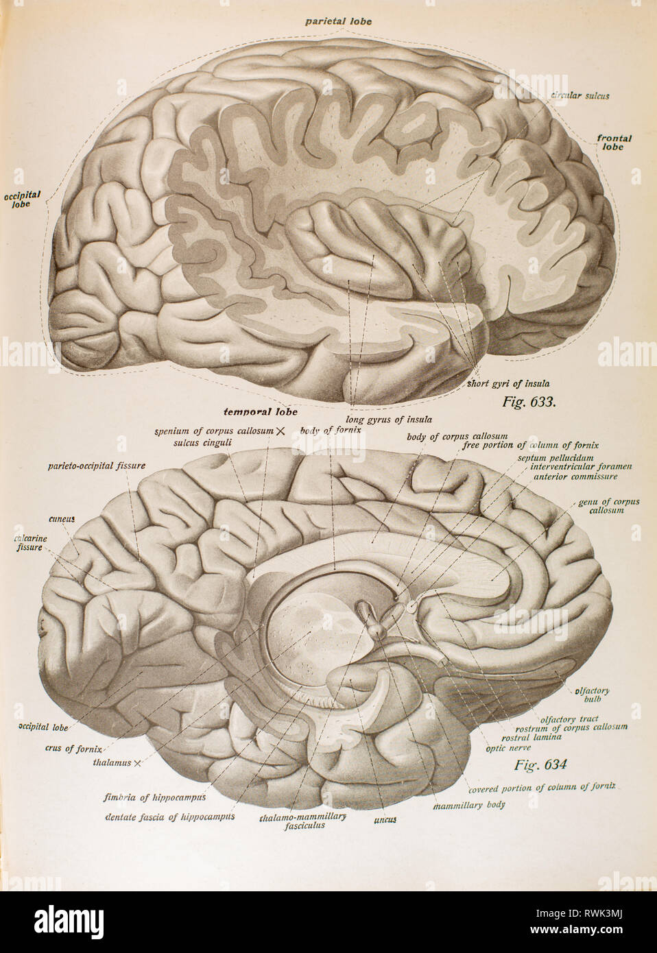 Dissection of human brain showing temporal and parietal lobes. - Stock Image