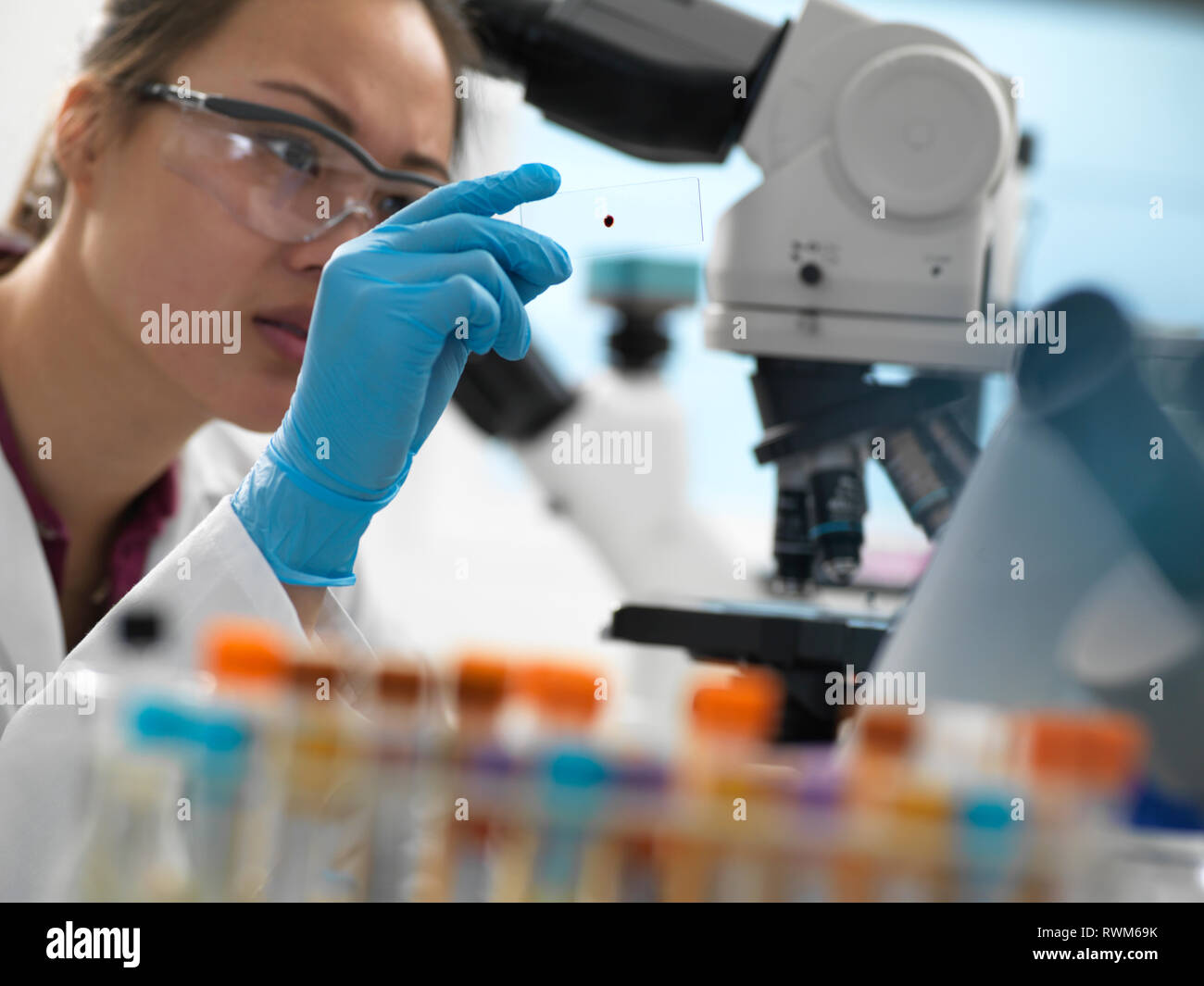 Scientist viewing human sample on glass slide before placing under microscope in laboratory Stock Photo