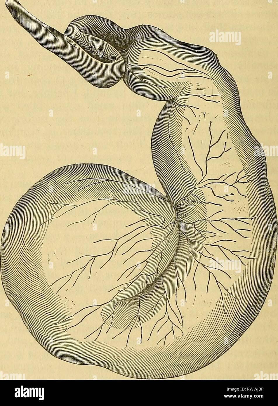 Elements of pathological anatomy (1843) - Stock Image