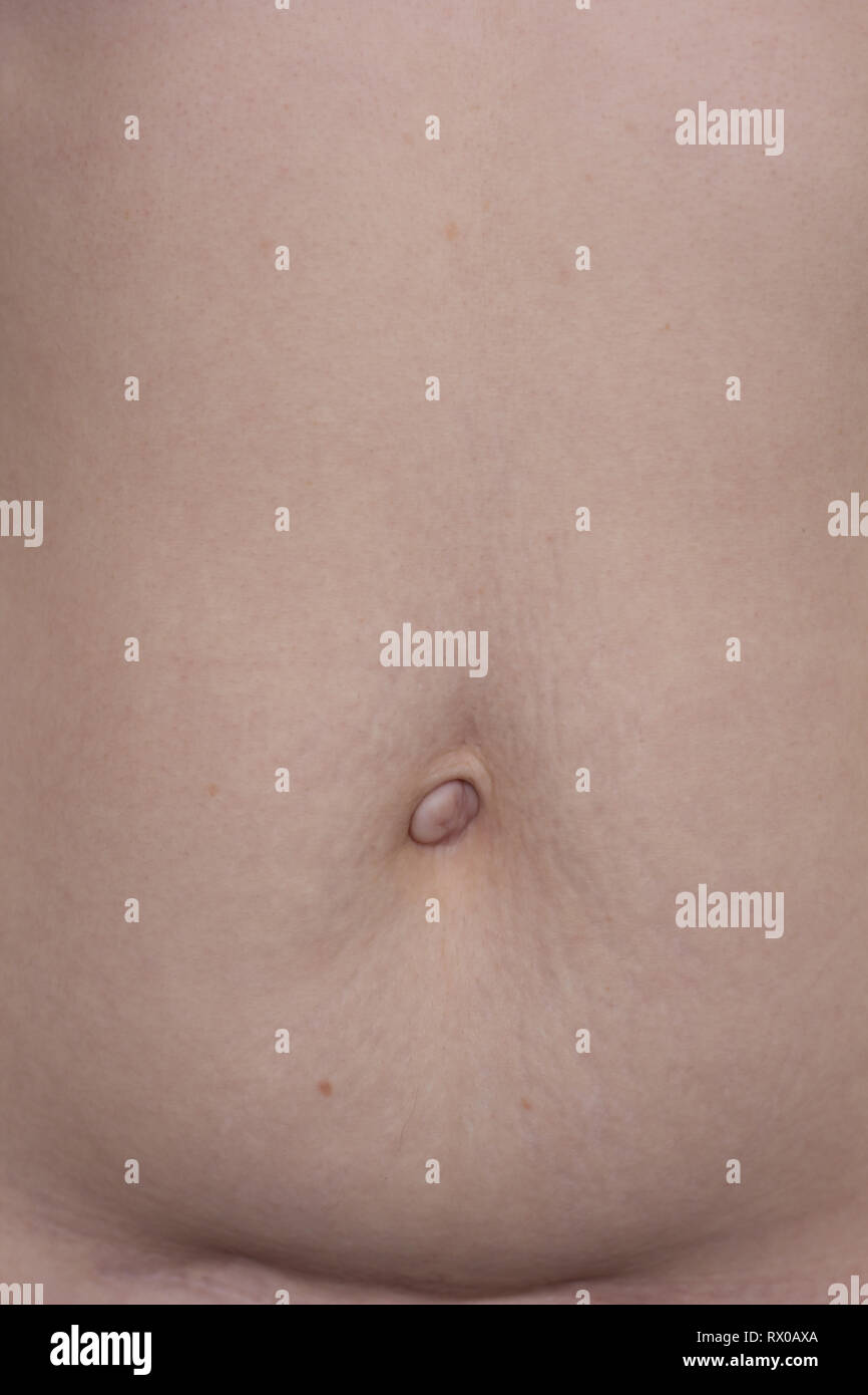 belly with a scar and stretch marks. postpartum woman's belly. ugly body. stretch marks - Stock Image