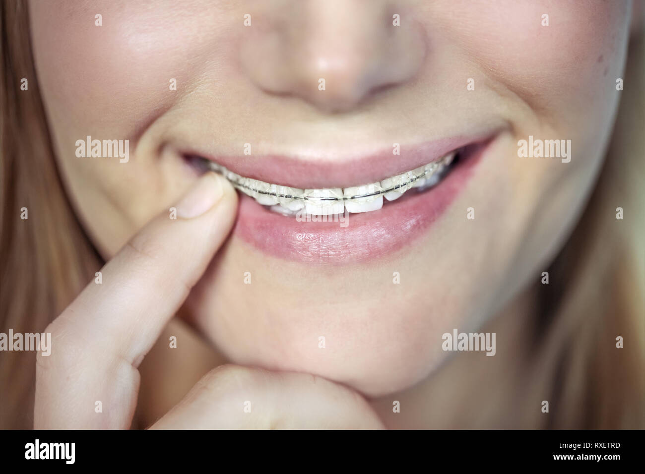 Closeup photo of a beautiful smile of a teen girl with braces, aesthetic dentistry, contemporary fixing of the teeth, health and dental care - Stock Image