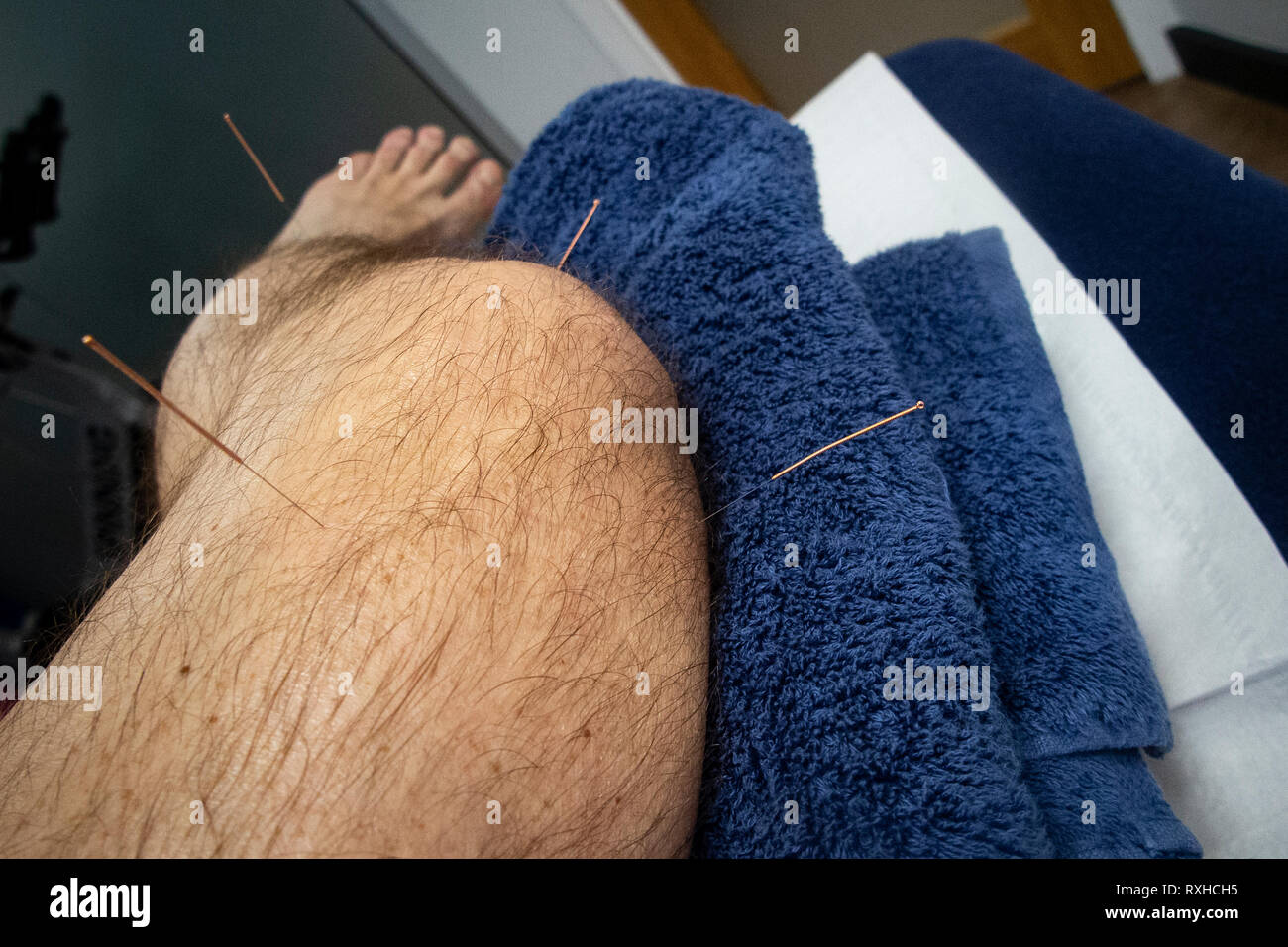 Acupuncture needles inserted in the leg of a man with an injured knee - Stock Image