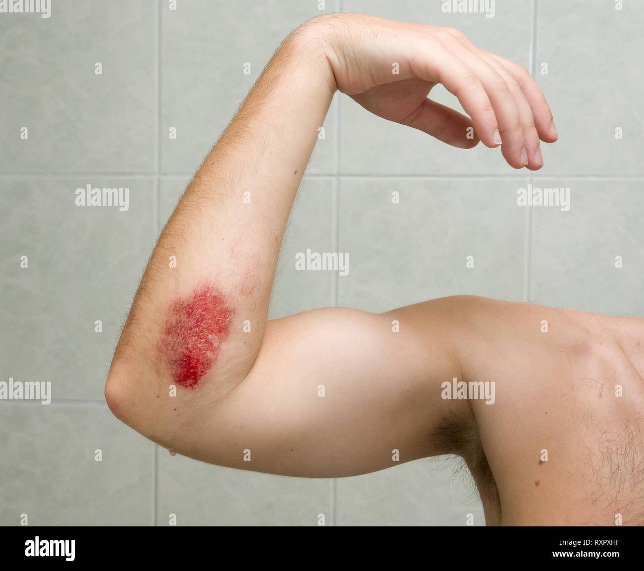 Scraped elbow - the result of inline skating accident. The wound is covered with antibacterial gel - Stock Image