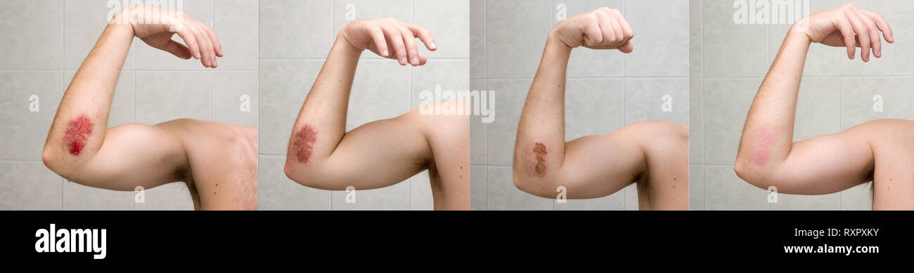 Wound healing process XXL. Painful bruise of elbow shot during three weeks - Stock Image