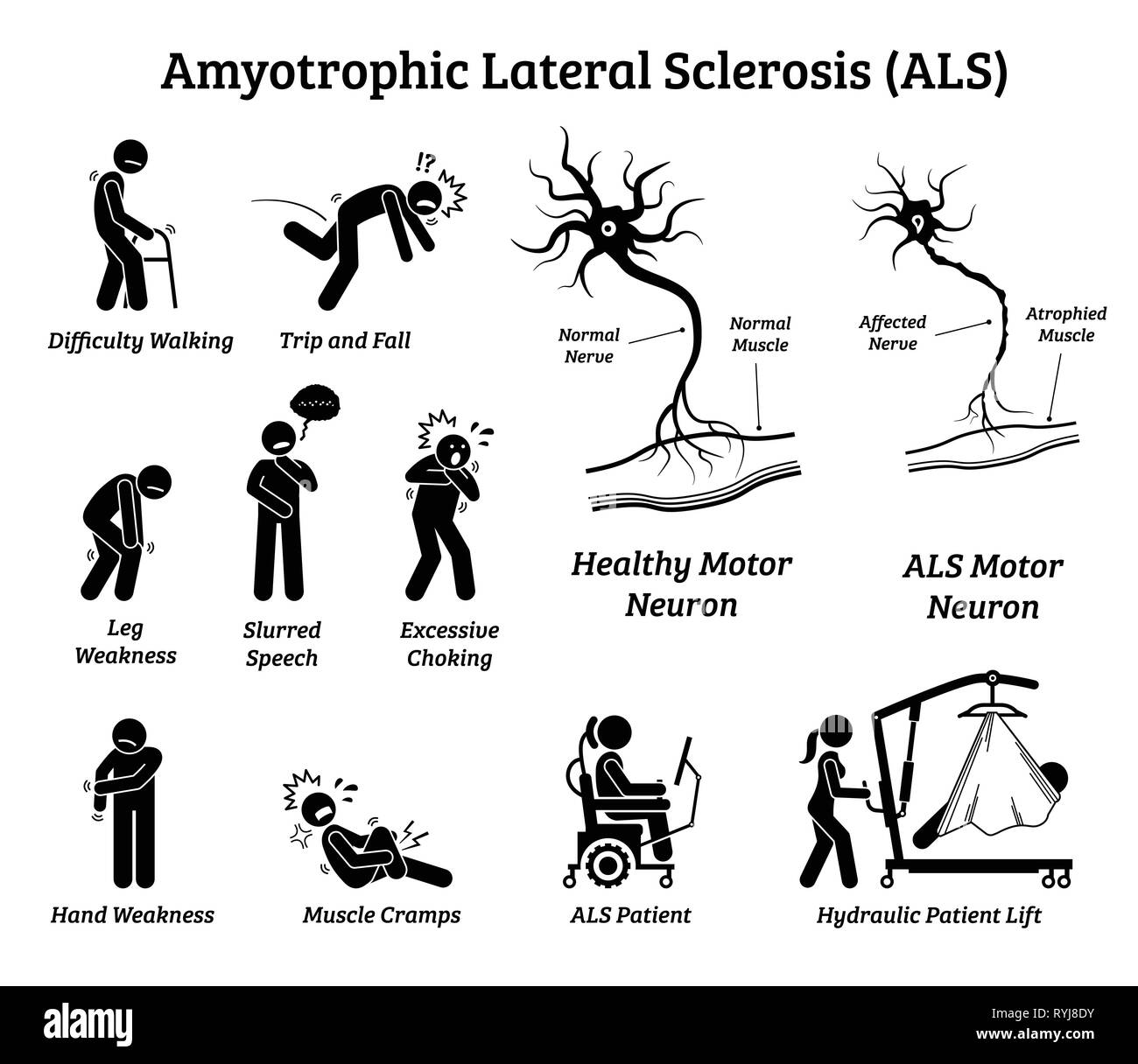 Amyotrophic lateral sclerosis ALS disease signs and symptoms. Illustrations depict nervous system or neurological disease in ALS patient. - Stock Image
