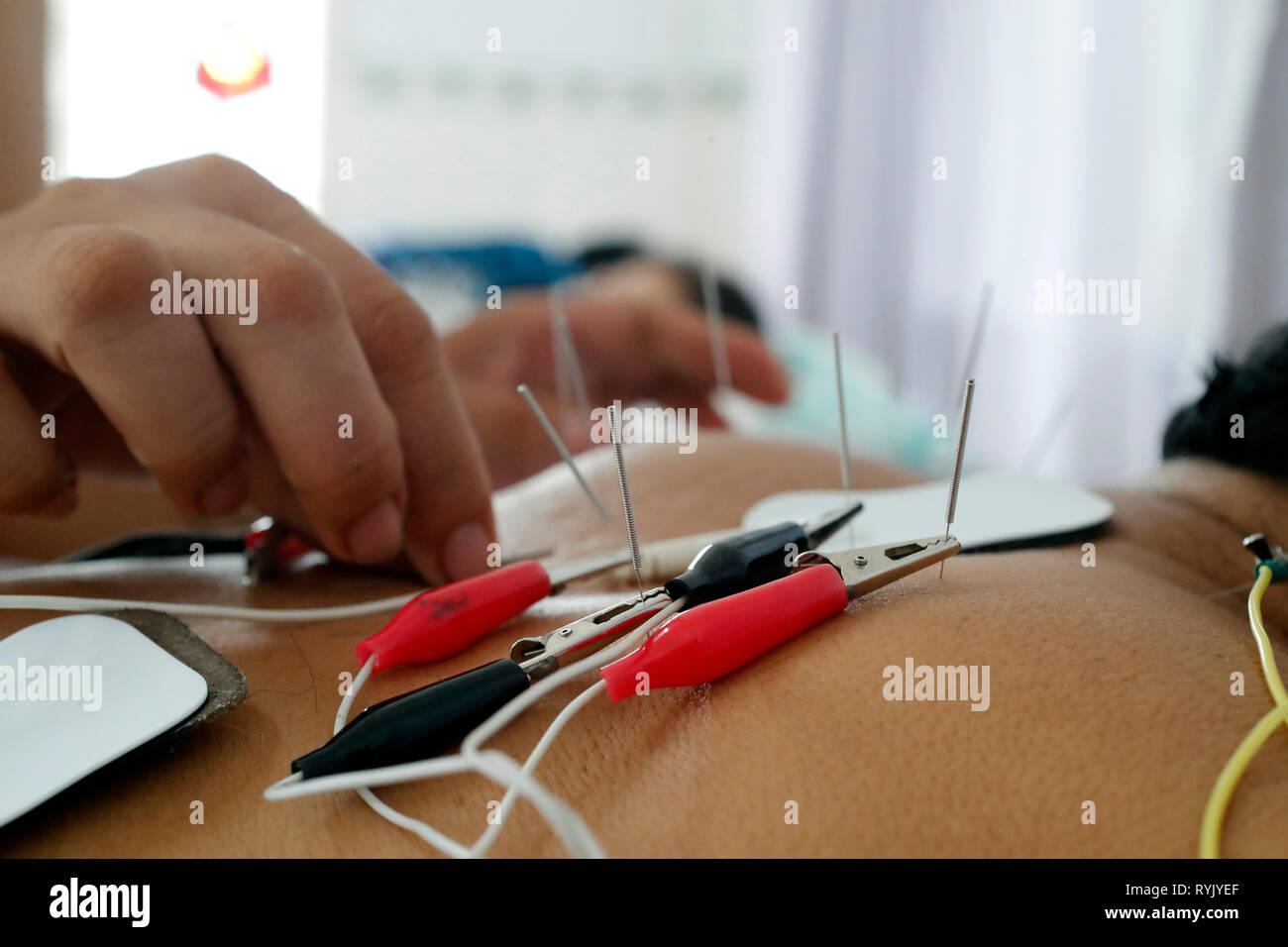 Vietnamese traditional medicine clinic.  Acupuncture treatment.  Cu Chi. Vietnam. - Stock Image
