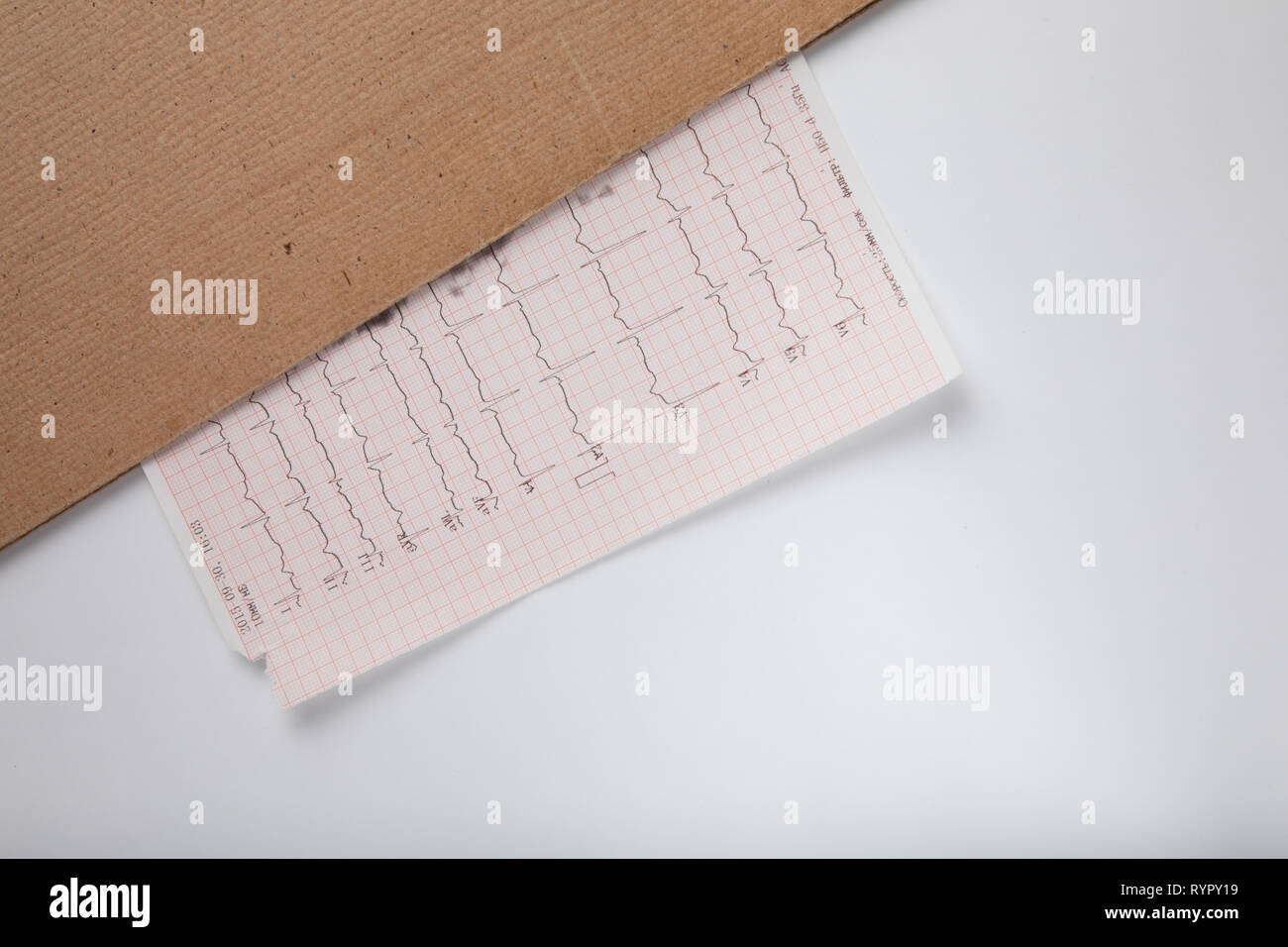 Medical records - EEG scan results - Human brain - brain waves - Stock Image