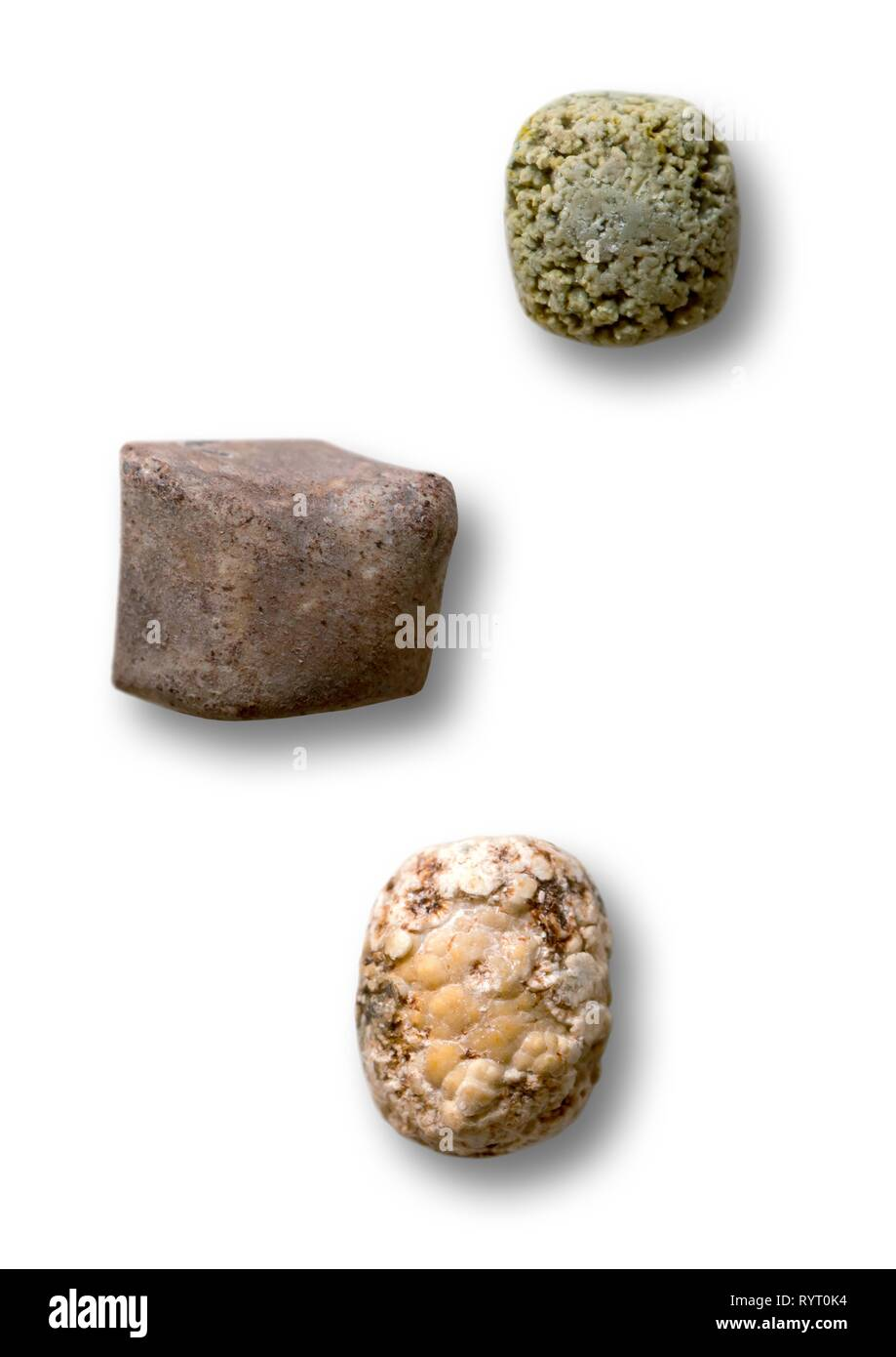 Gallstones operated out, from top to bottom Calcium stone, bilirubin stone, cholesterol stone, Germany - Stock Image