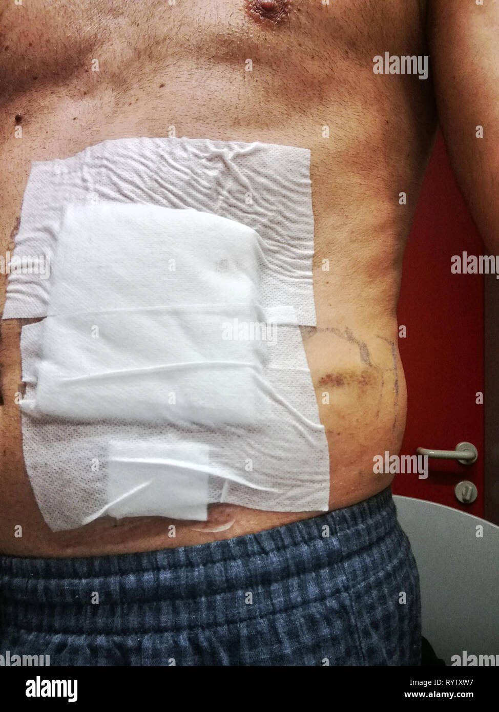 medicated abdomen after surgery - Stock Image