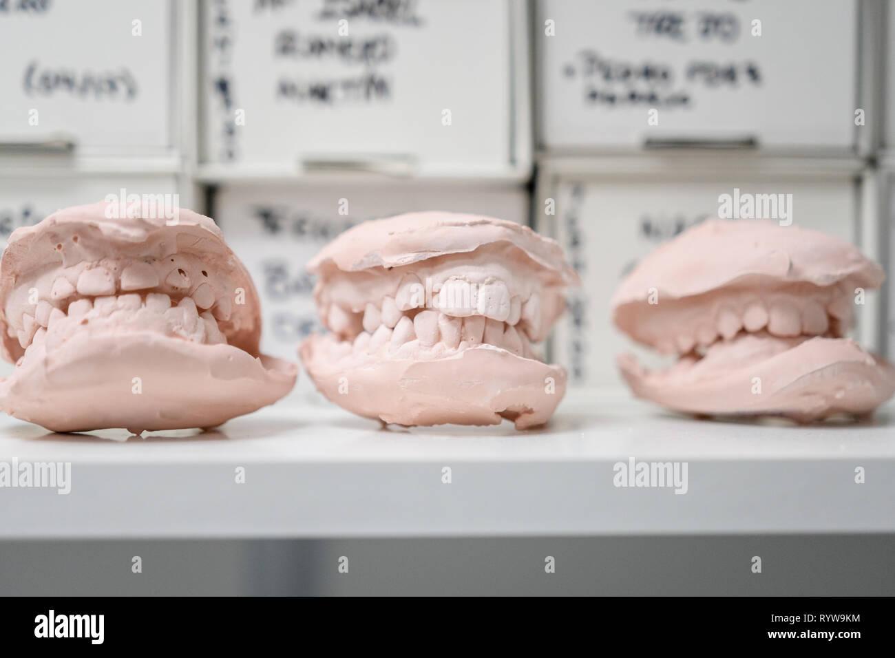 Dental casting gypsum model plaster cast stomatologic human jaws prothetic laboratory, technical shots - Stock Image