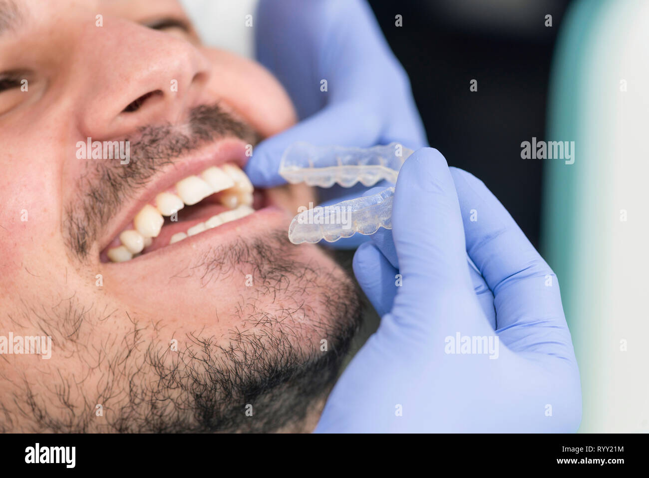 Orthodontist fitting invisible braces. - Stock Image