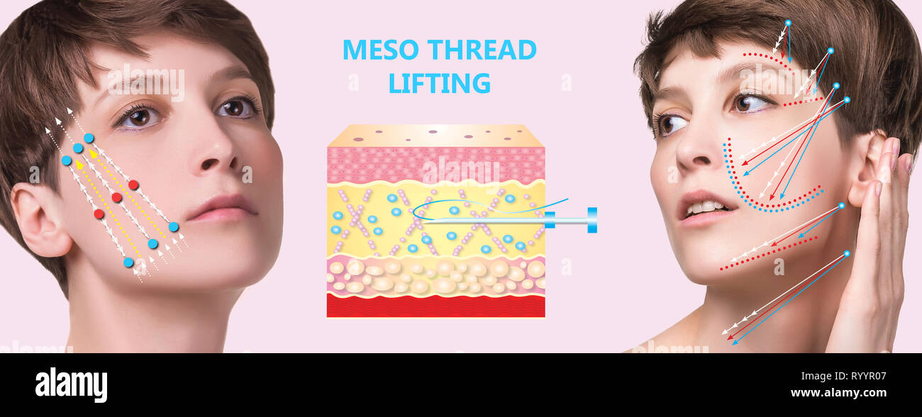 Meso thread Lift  Young female with clean fresh skin