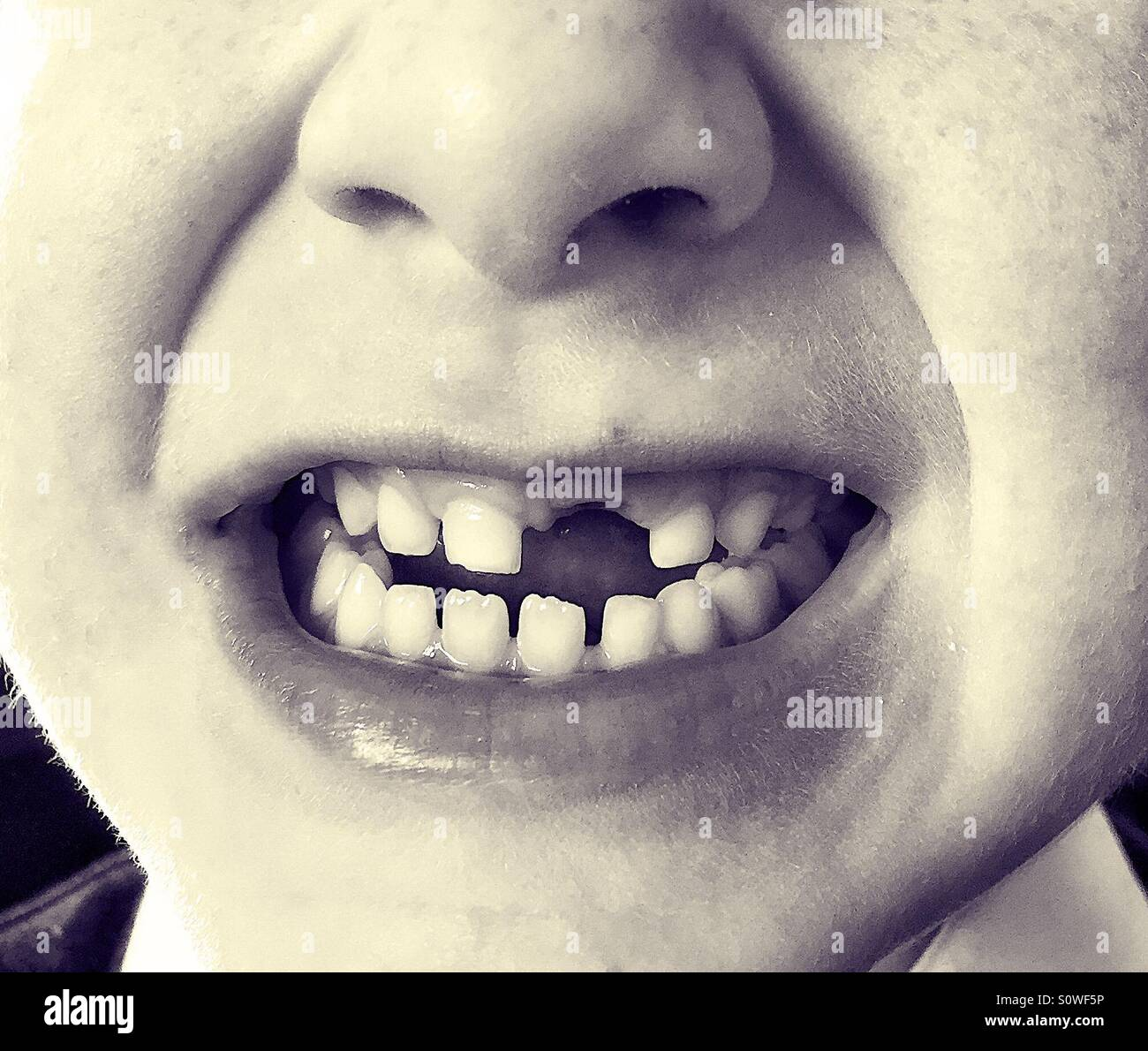 Child's missing front tooth. - Stock Image