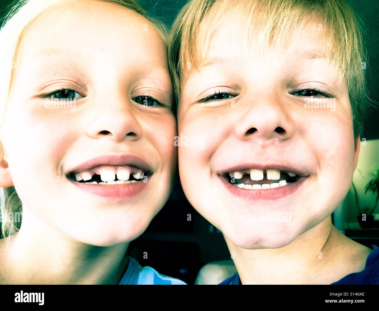 Siblings missing exactly the same baby teeth. Stock Photo