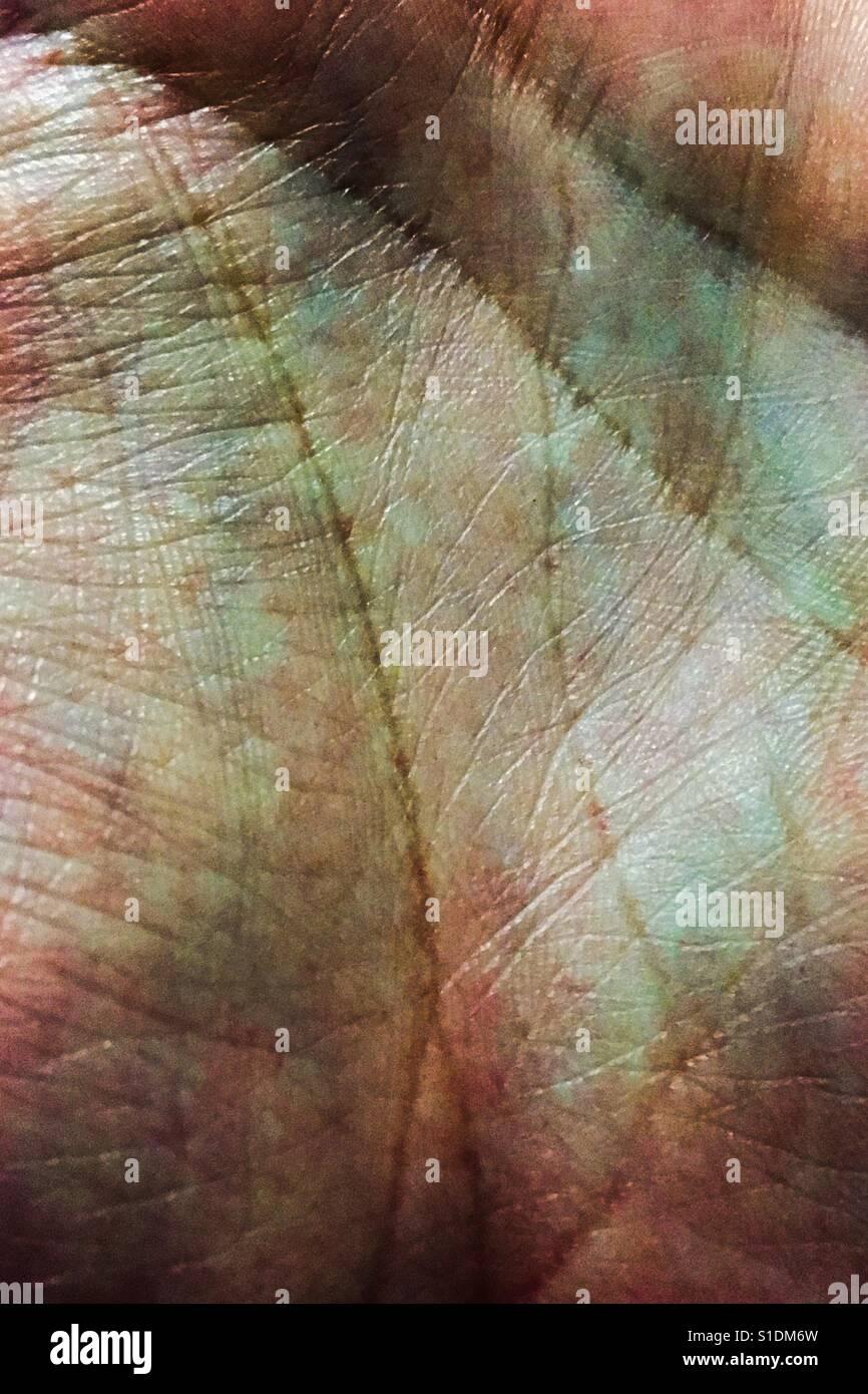 Bruised hand. - Stock Image