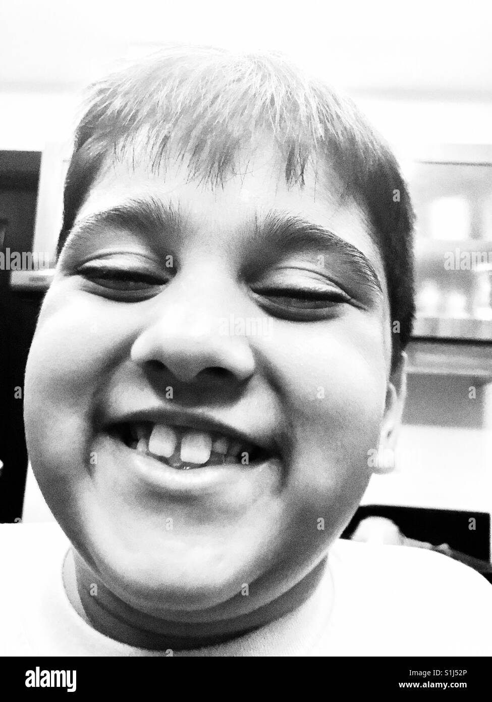 A 7 year old boy is happy to see his permanent central incisors( front teeth) grown back again😀 - Stock Image