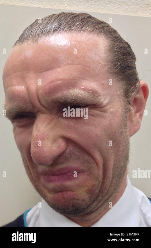 Caucasian man with an expression of dissatisfaction on his face (portrait orientation). Taken by Matthew Oakes. - Stock Image