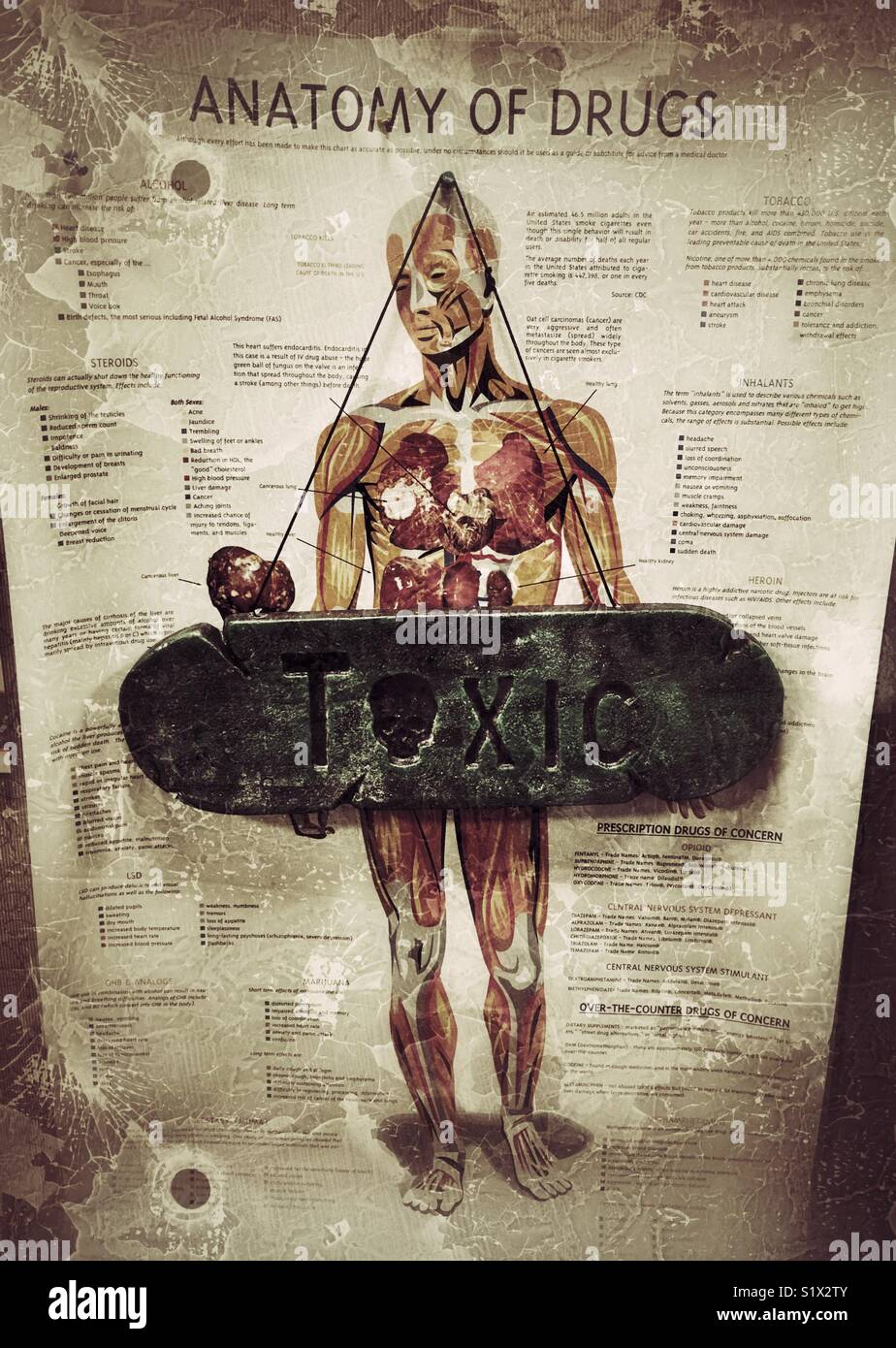 """Anatomy of Drugs"""" poster with a """"TOXIC"""" sign over the body Stock ..."""