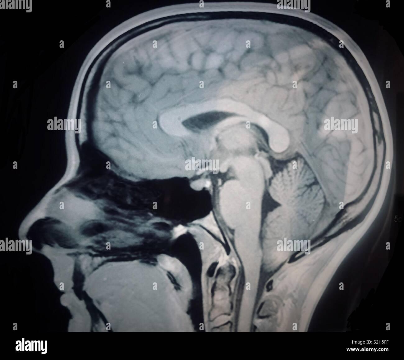 mri brain scan stock photos amp mri brain scan stock images
