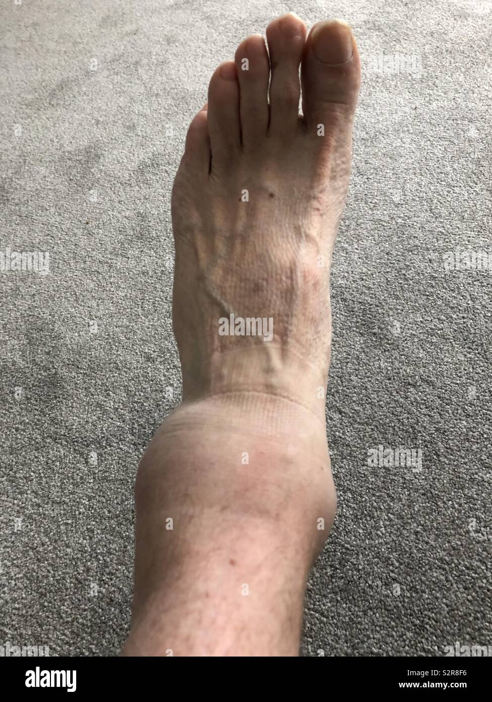 Badly sprained and swollen ankle - Stock Image