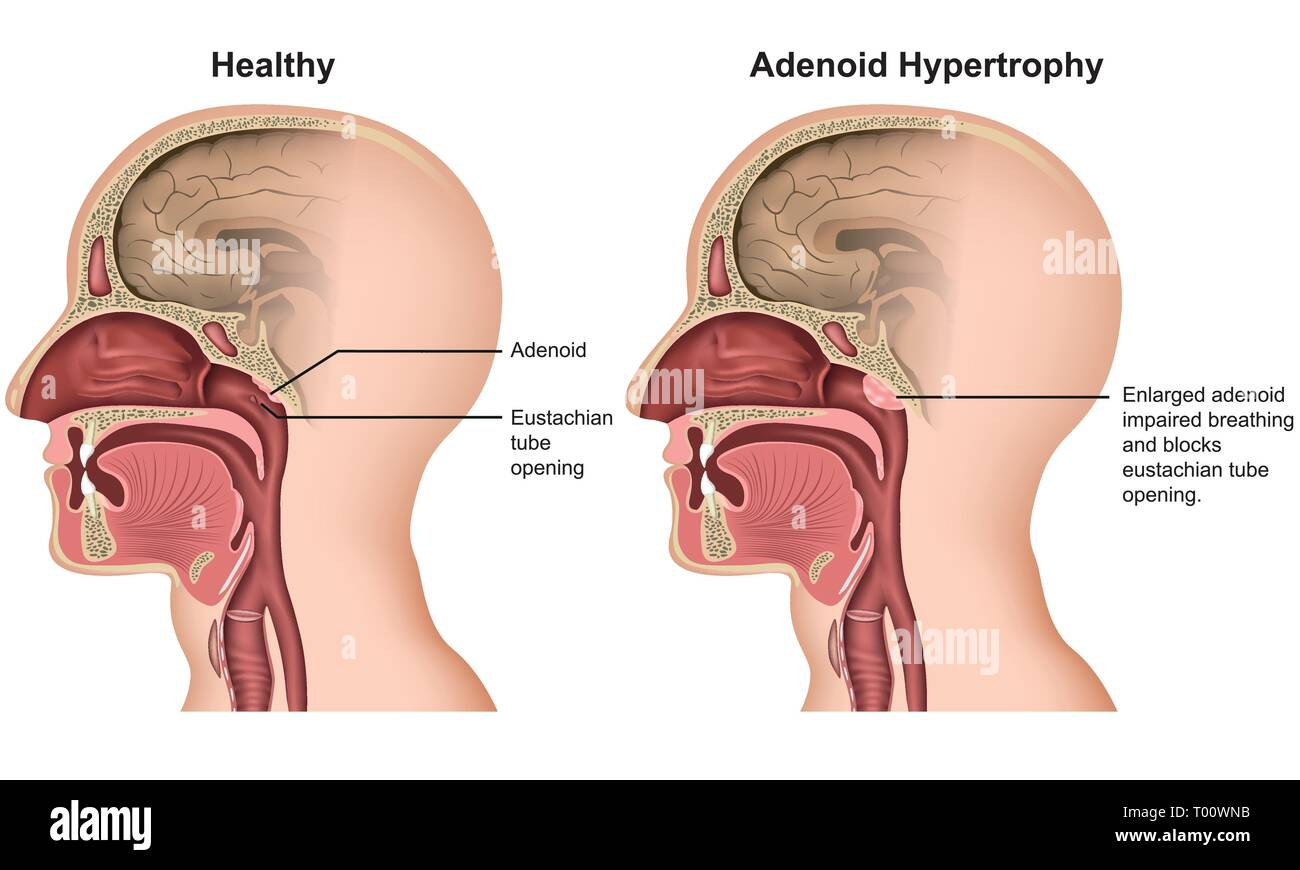 Adenoid hypertrophy medical vector illustration on white background - Stock Image
