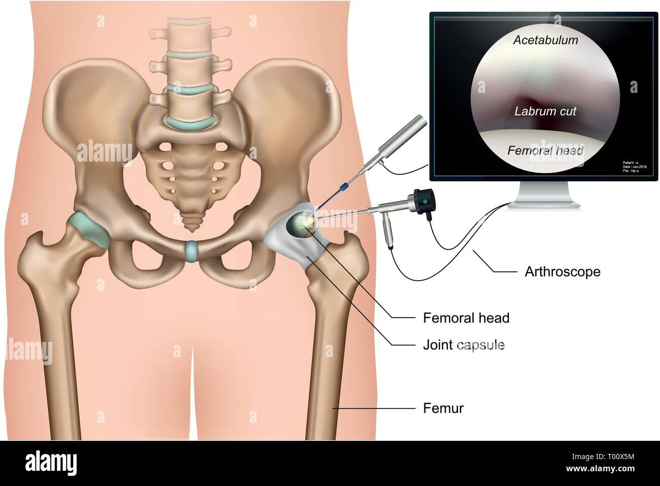 Hip arthroscopy 3d medical vector illustration on white background Stock Vector