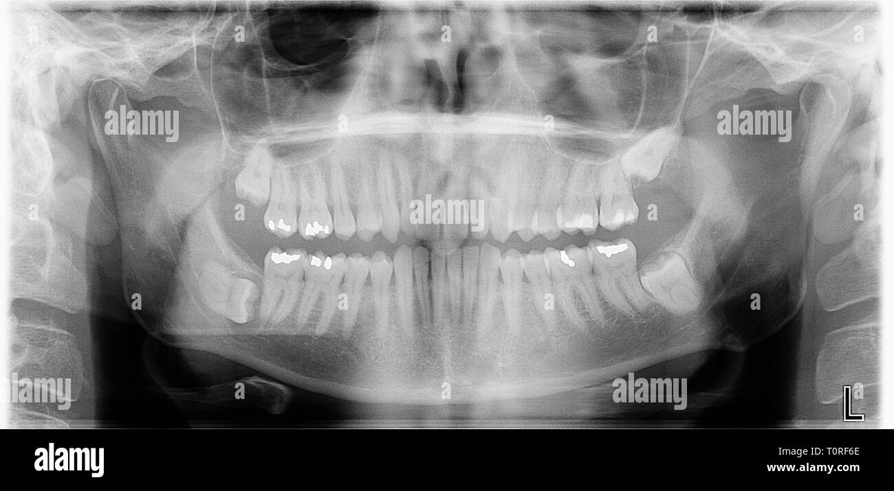 A panoramic xray of a mans jaw and teeth showing his impacted wisdom teeth and a possible cyst on the lower left wisdom tooth. - Stock Image