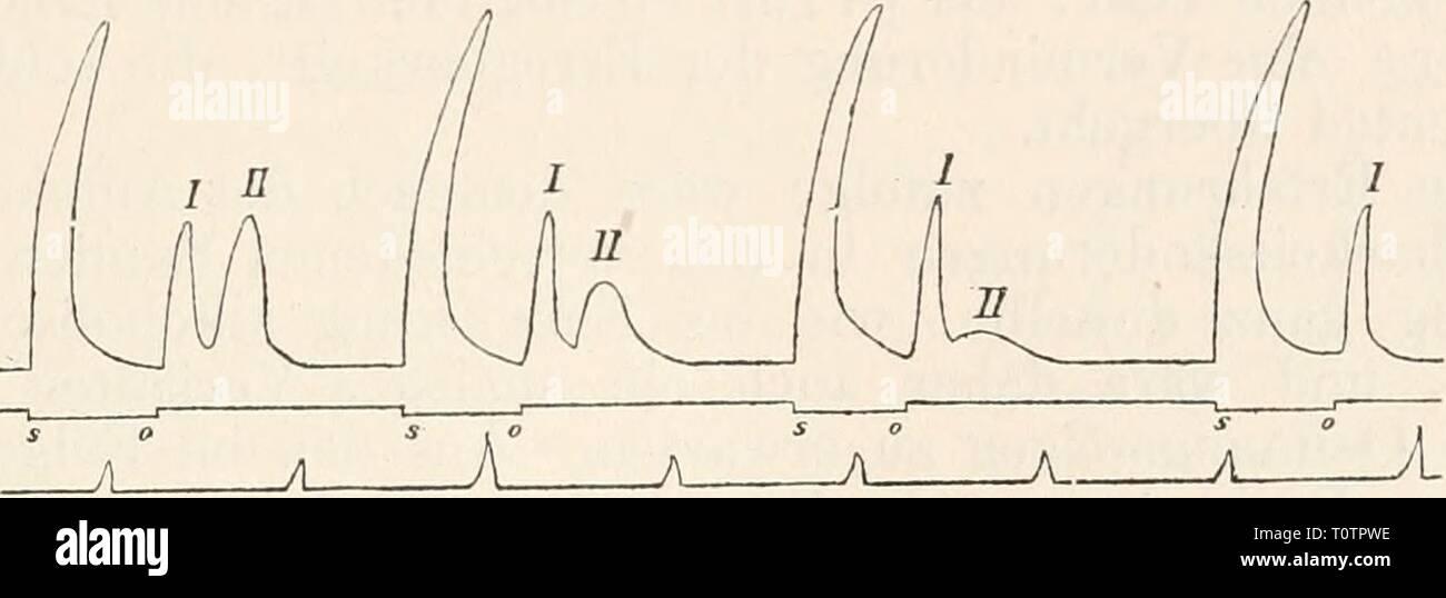 Elektrophysiologie (1895) Elektrophysiologie  elektrophysiolog00bied Year: 1895  Die elektrische Erregung der Nerven. 591 (etwa 10 Vol. ^/o) behandelt und von Minute zu Minute mit einem auf- oder absteigend gerichteten Kettenstrom von geringer Intensität reizt (es empfiehlt sich im Allgemeinen die aufsteigende Stromesrichtung deshalb mehr^ weil sich bei derselben die Wirkung der Anode ganz ungestört zu entfalten vermag), so bemerkt man bald neben der, anfangs allein vorhandenen, bereits ausführlich be- sprochenen, verspäteten Oeffnungszuckung eine zweite, welche sich, im Momente der Oeffnung b Stock Photo